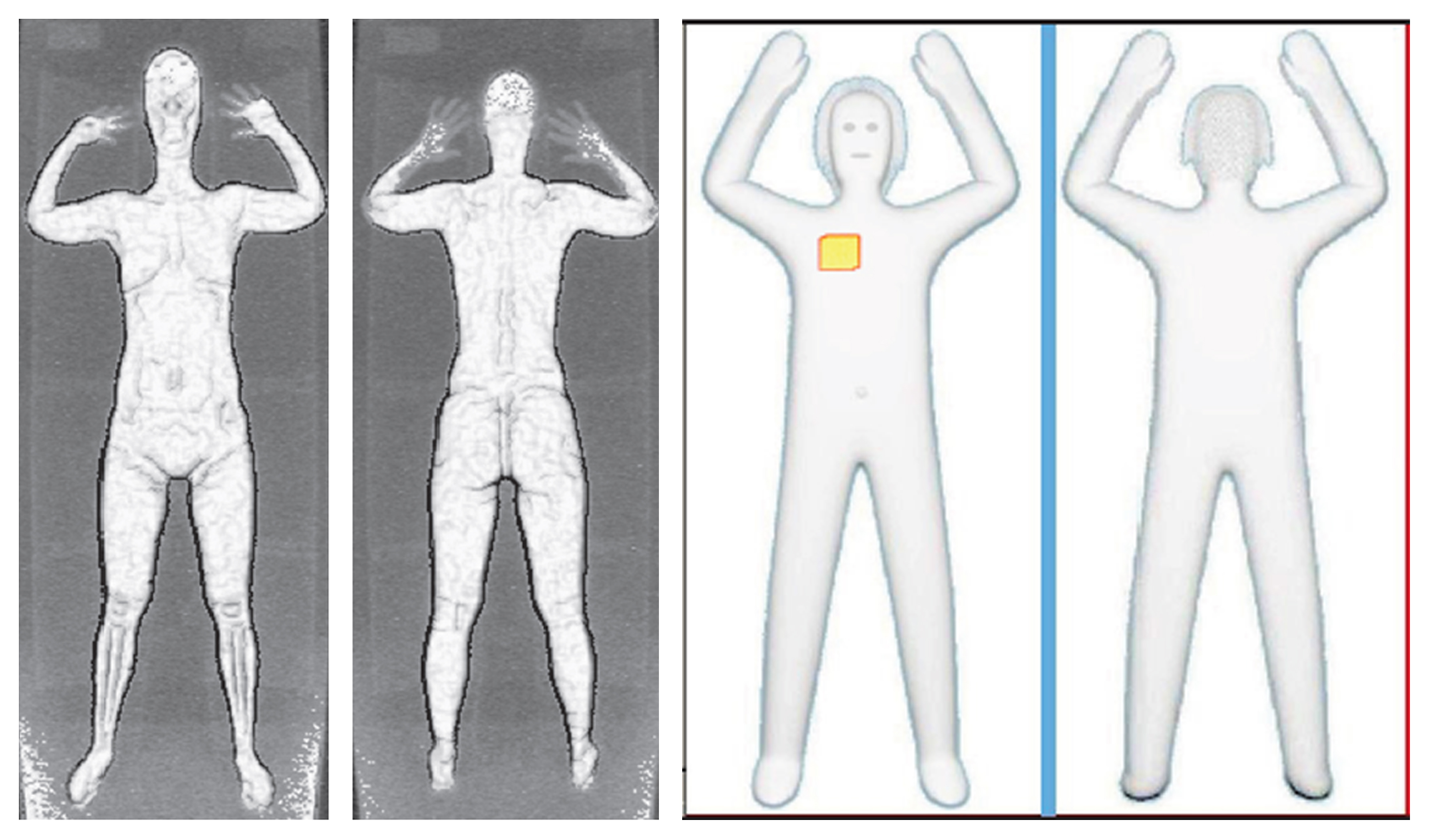 These two sets of images provided by the Transportation Security Administration are samples that show details of what TSA officers see on computer monitors when passengers pass through airport body scanners.