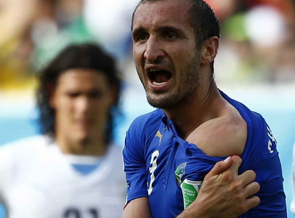 Italy's Giorgio Chiellini shows his shoulder, claiming he was bitten by Uruguay's Luis Suarez, during their 2014 World Cup Group D soccer match at the Dunas arena in Natal, Brazil on June 24, 2014.