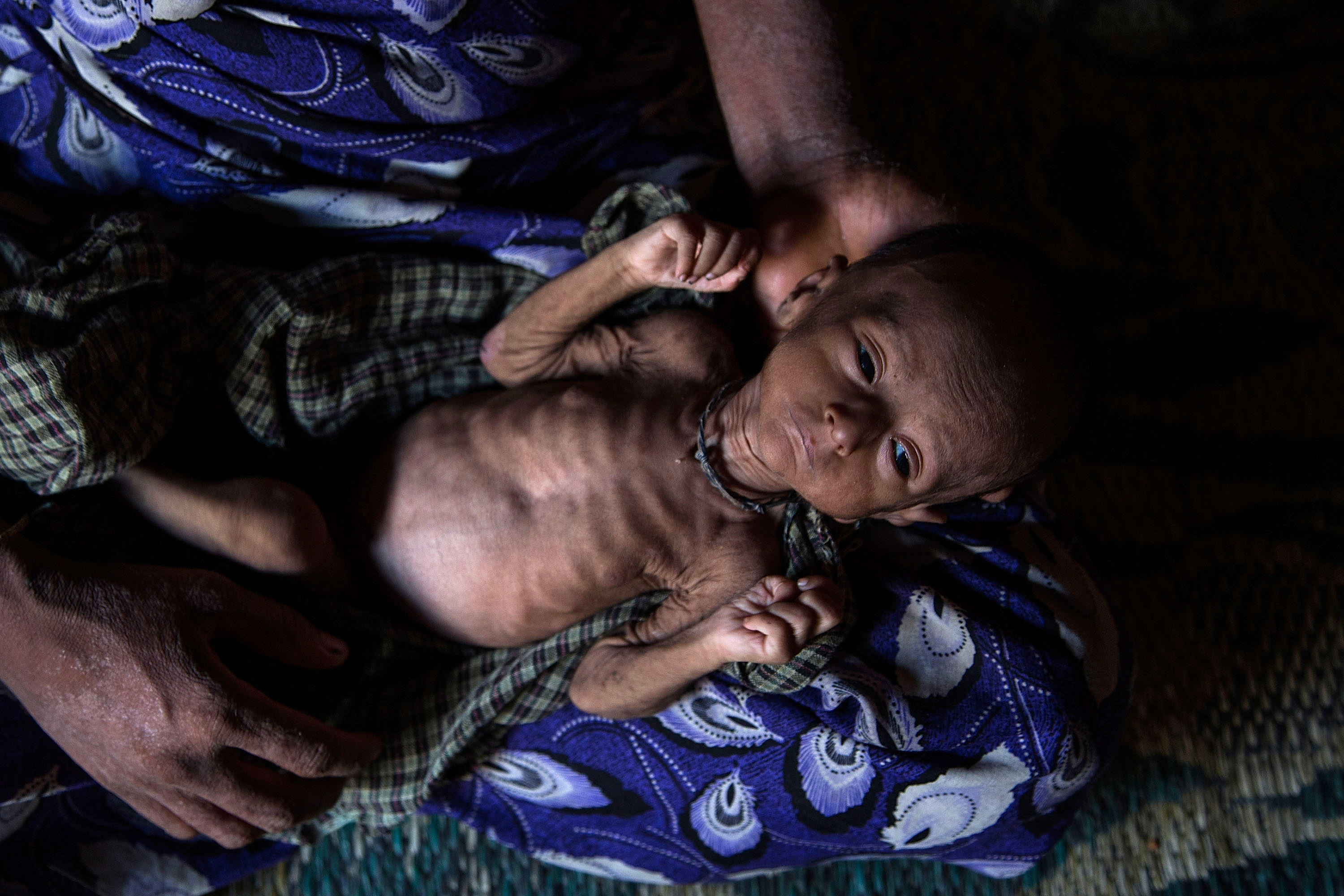 Rosheda Bagoung holds her malnourished child inside the tent at the Dar Paing refugee camp in Sittwe, Burma, on May 10, 2014
