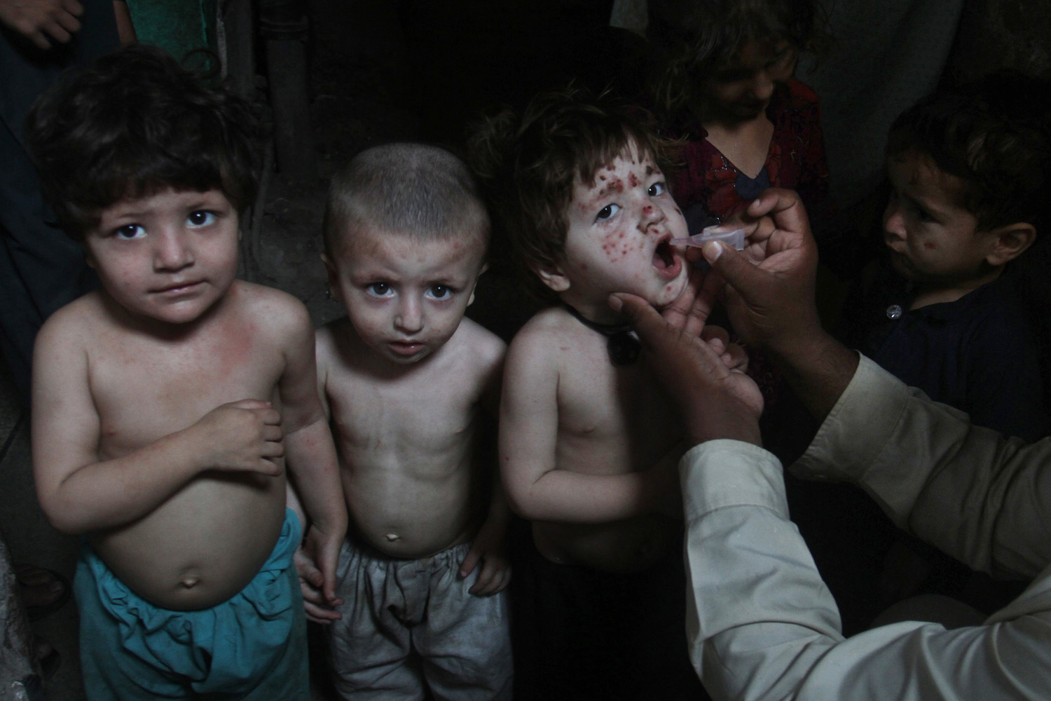June 4, 2014. A Pakistani health worker gives a polio vaccine to children in Lahore, Pakistan.