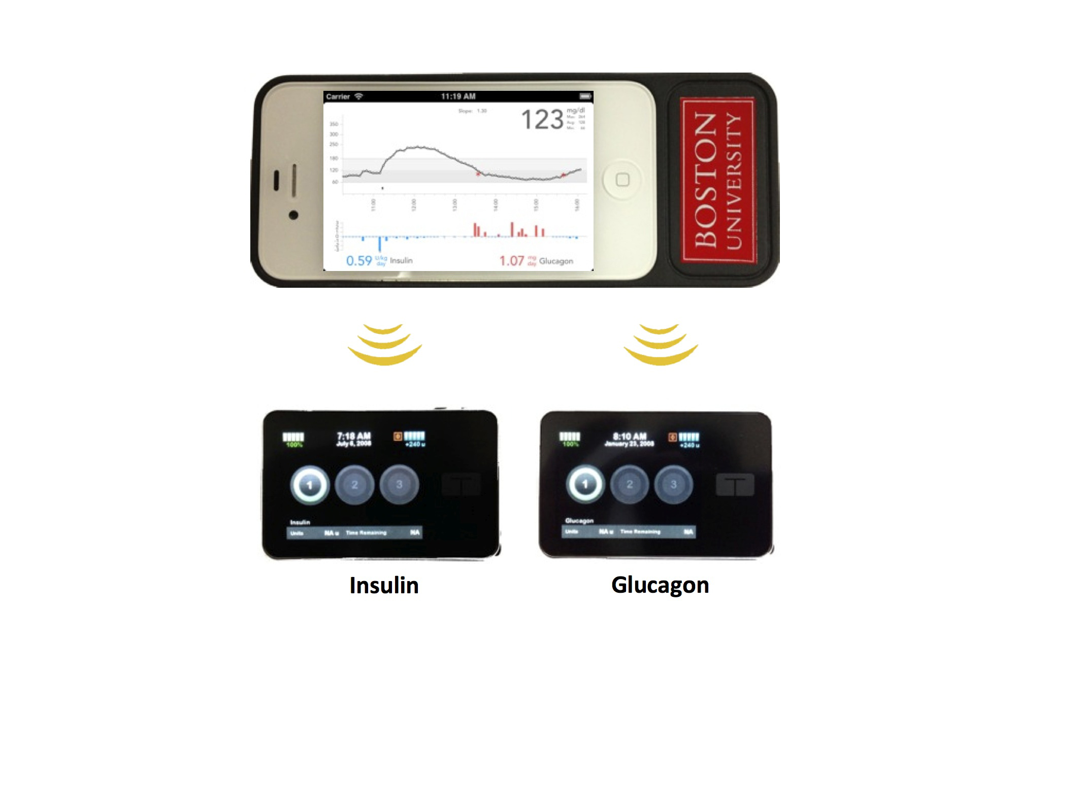 The bionic pancreas consists of a smartphone, top, hardwired to a continuous glucose monitor and two pumps, bottom, that pumps deliver doses of insulin or glucagon every five minutes.