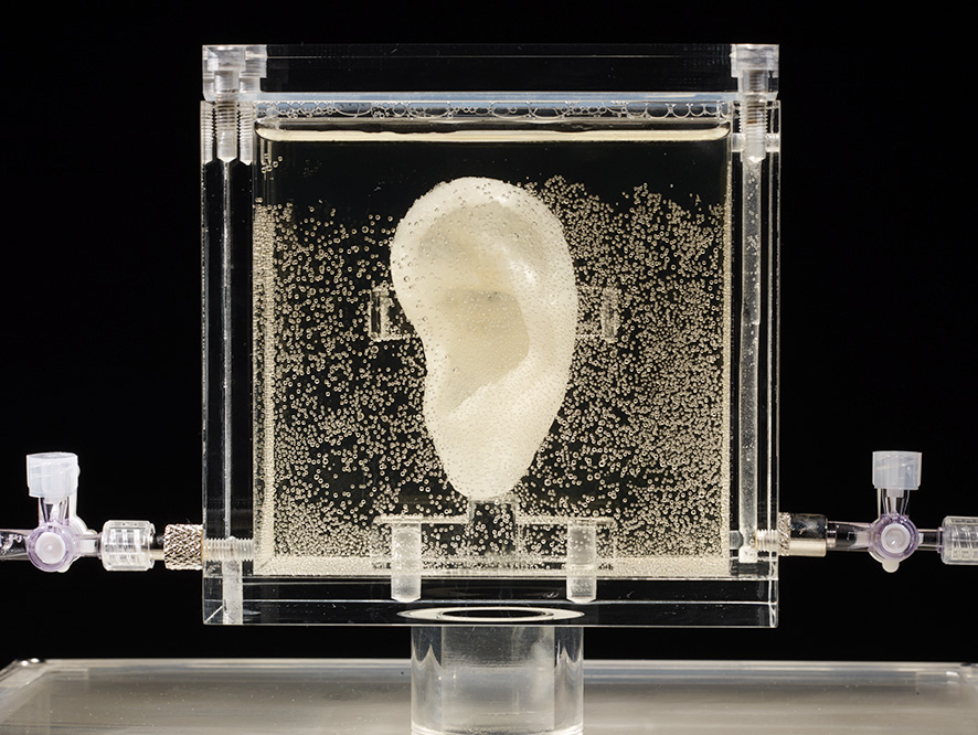 Undated picture shows an ear made of human cells grown from samples provided from a distant relative from Dutch artist Vincent van Gogh, in the center for art and media in Karlsruhe, Germany, Tuesday, June 3, 2014.