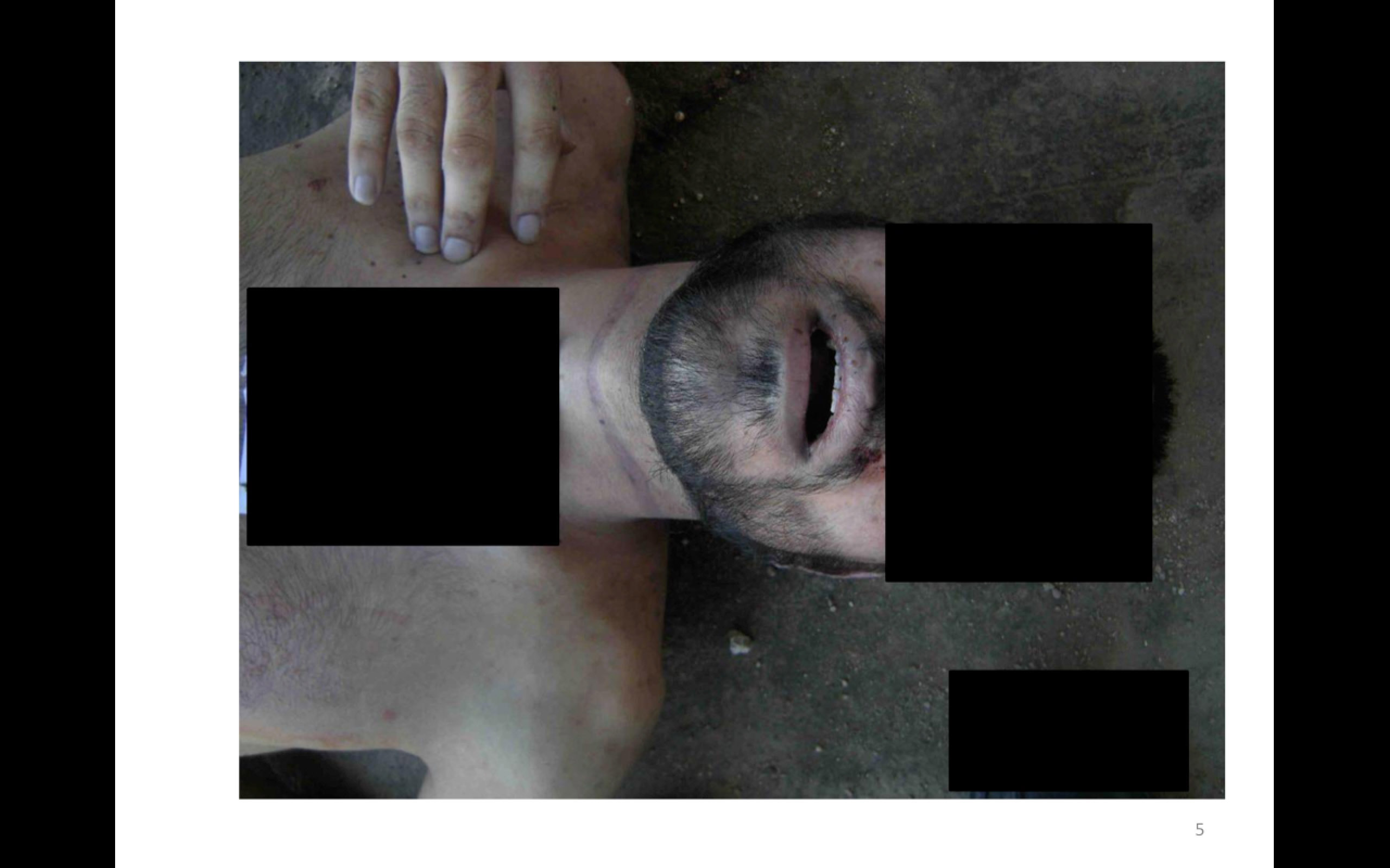 This undated photograph made available in a January 2014 report by the Carter-Ruck law firm, commissioned by the Qatari government, shows evidence of alleged torture and execution at the secret jails of Syria's president, Bashar al-Assad. It is part of an archive of 55,000 images said to depict 11,000 dead bodies photographed over the last two years and leaked to Syrian opposition forces by a Syrian military photographer.
