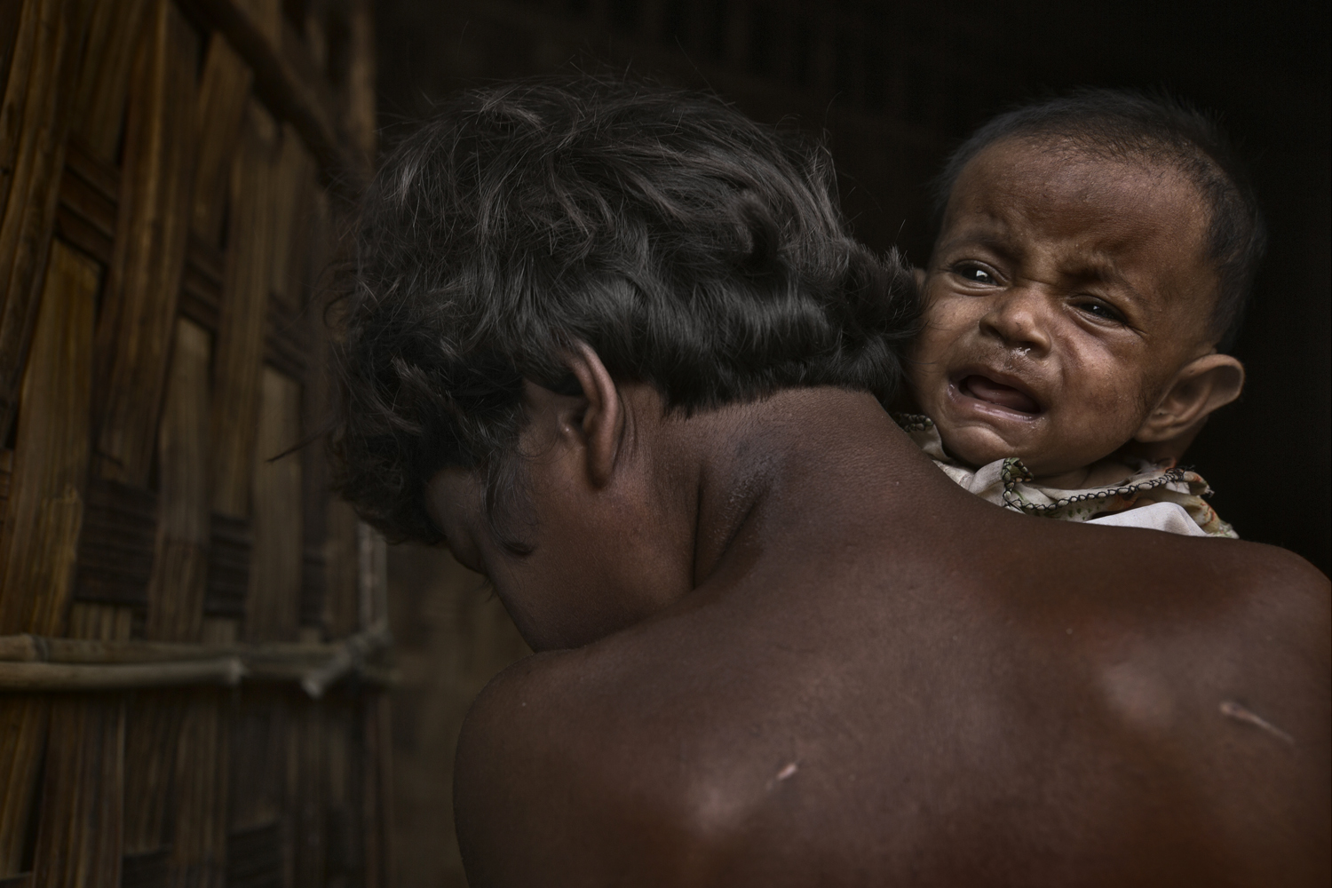 A child suffering from malnutrition in one of the camps is held by its mother.