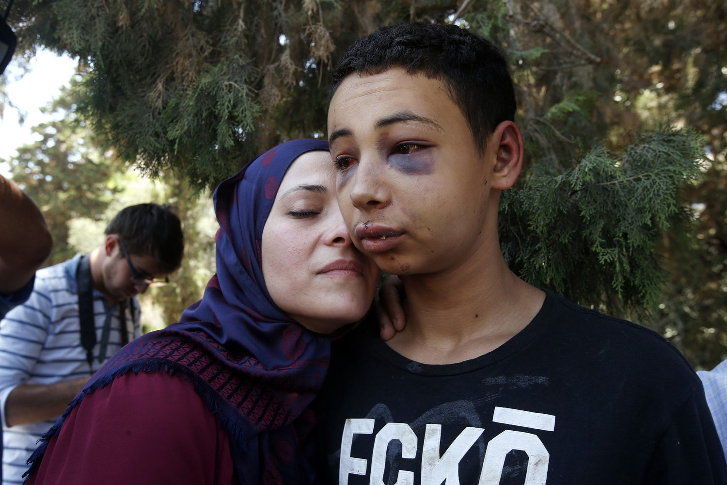 Jul. 6, 2014. Tariq Khdeir (R) is greeted by his mother after being released from jail in Jerusalem.