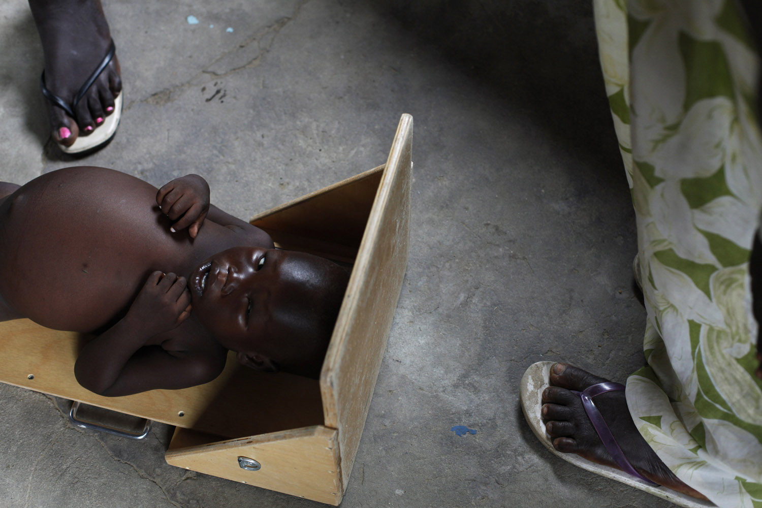 Jul. 16, 2014. A severely malnourished child is measured at the Medecins Sans Frontieres (Doctors Without Borders, MSF) feeding center in Leer, Unity State, South Sudan.
