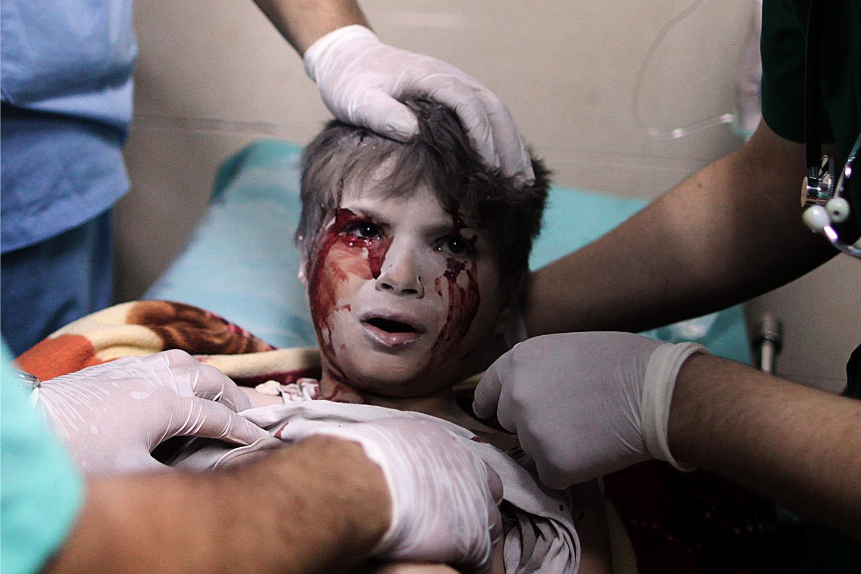 Jul. 20, 2014. A Palestinian boy, who medics said was wounded by Israeli shelling, receives treatment at al-Shifa
