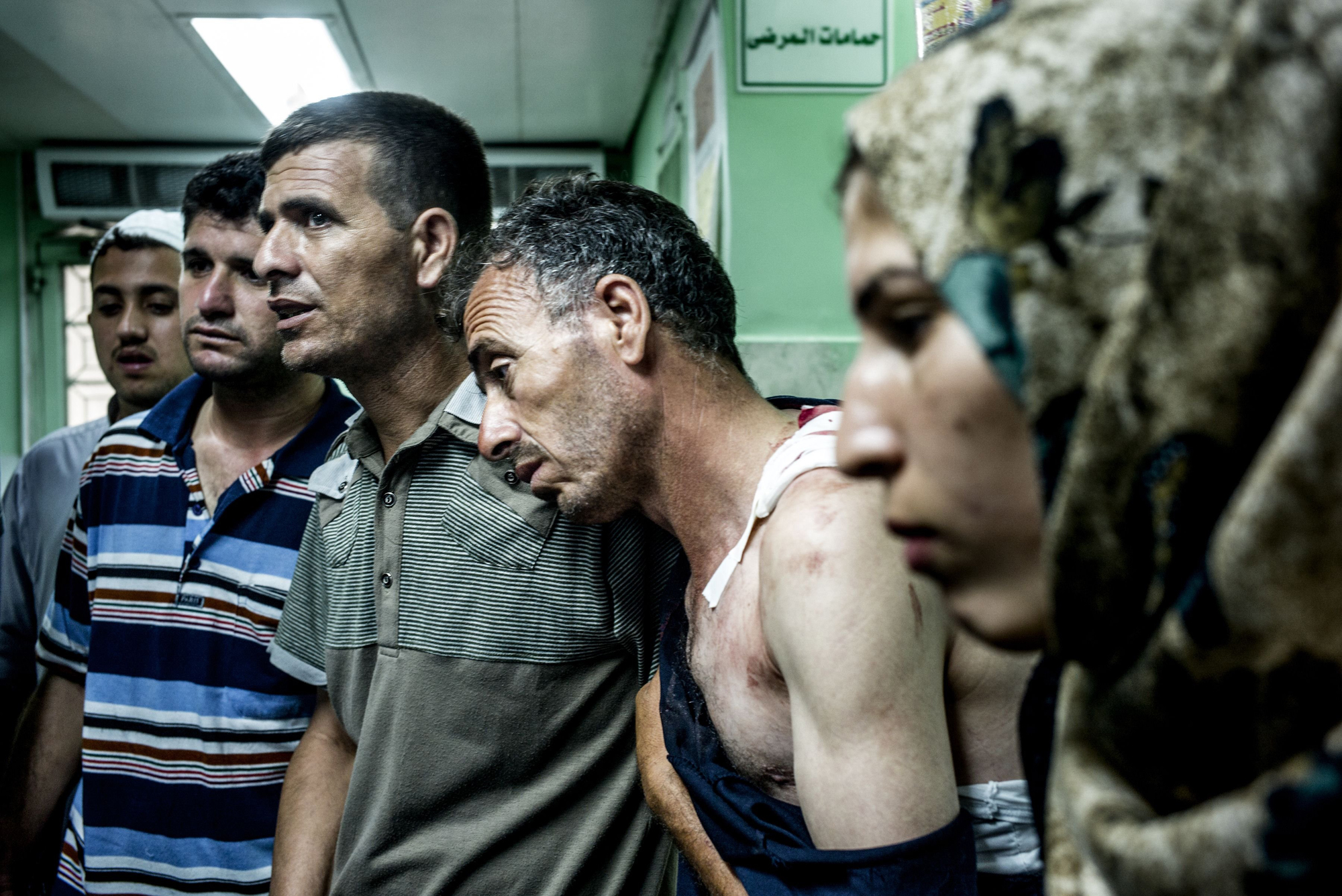 Palestinian civilians wounded during Israeli shelling of a U.N. school wait at the Kamal Odwan Hospital in northern Gaza Strip on July 30, 2014
