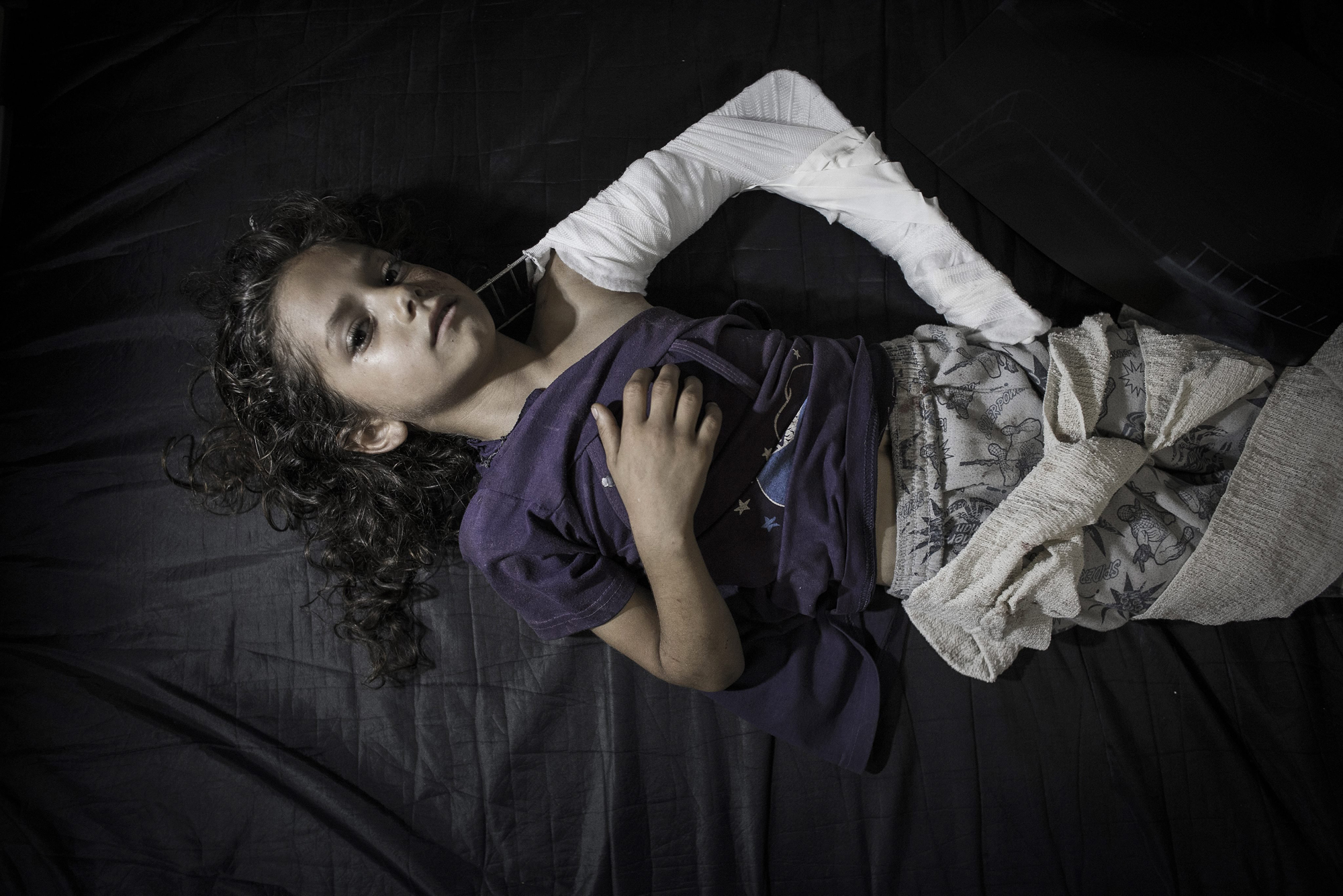 A young Palestinian girl who got injured when a UN school for refugees was allegedly hit by a Israeli tank shells, lies on a hospital bed in the emergency room of Kamal Adwan hospital in Beit Lahiya, Gaza Strip, July 24, 2014.