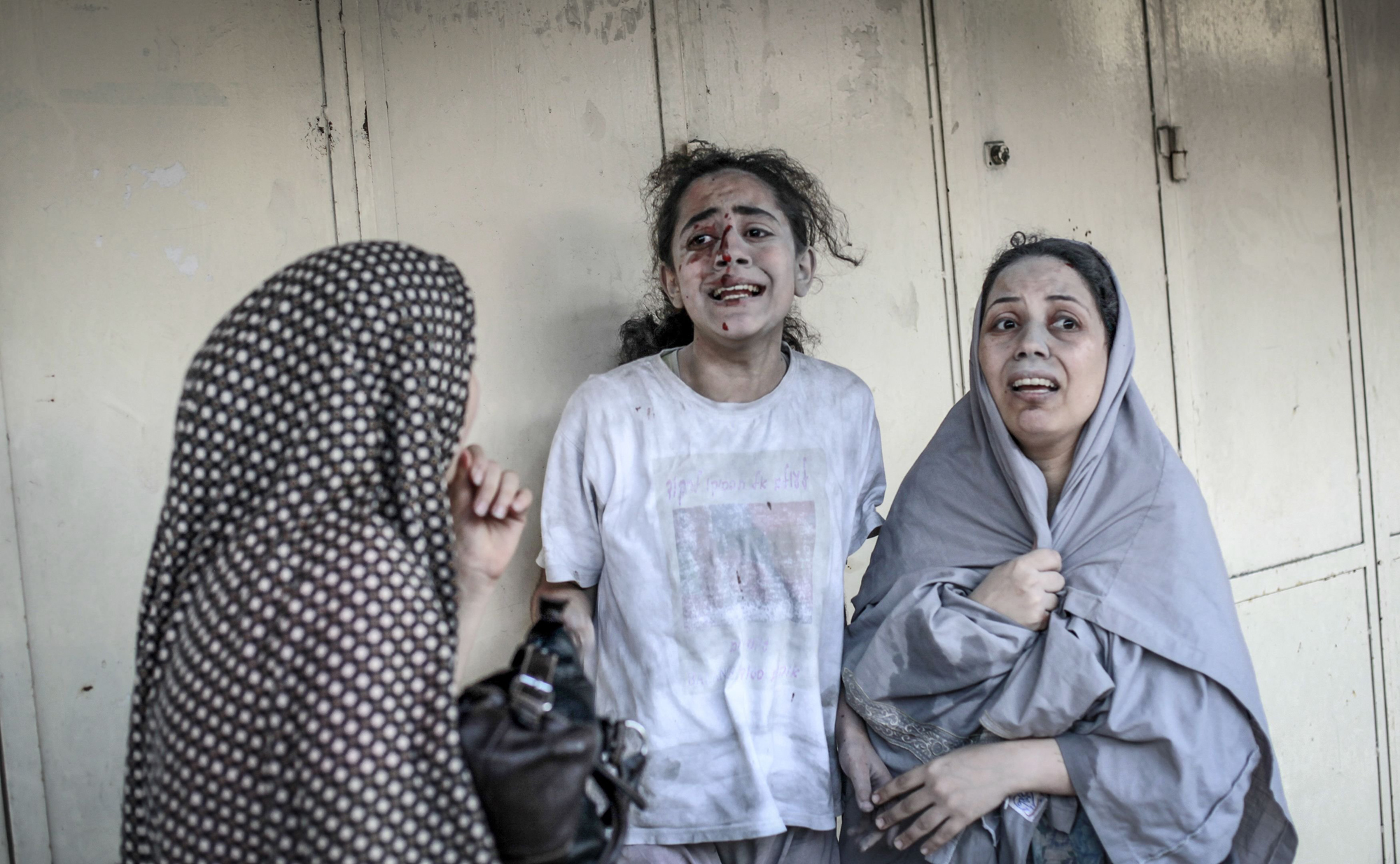Palestinians evacuate a victim from a building that was hit by an Israeli strike in Gaza City, July 20, 2014.
