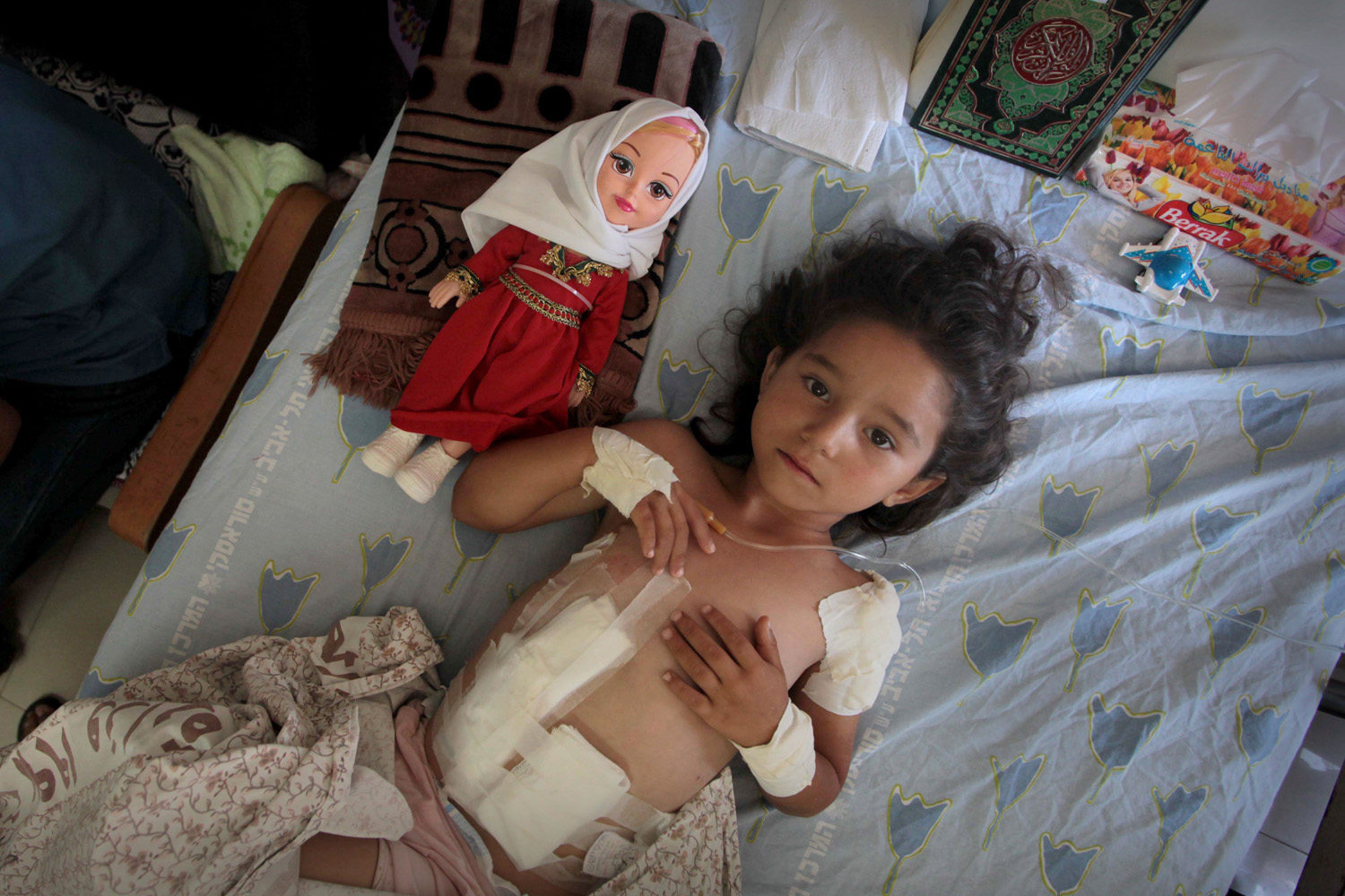 Jul. 15, 2014. Four-year-old Palestinian girl Shayma Al-Masri, who hospital officials said was wounded in an Israeli air strike that killed her mother and two of her siblings, lies on a bed next to her doll as she receives treatment at a hospital.