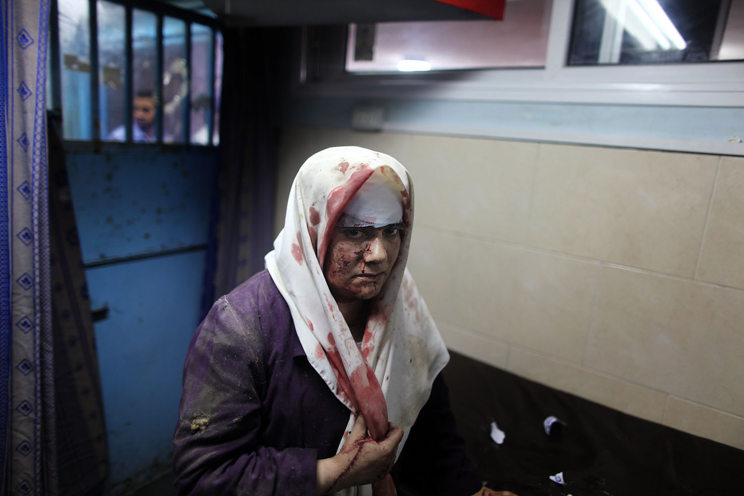A Palestinian woman, who medics said was wounded by Israeli shelling, receives treatment at al-Shifa hospital in Gaza City, July 20, 2014.