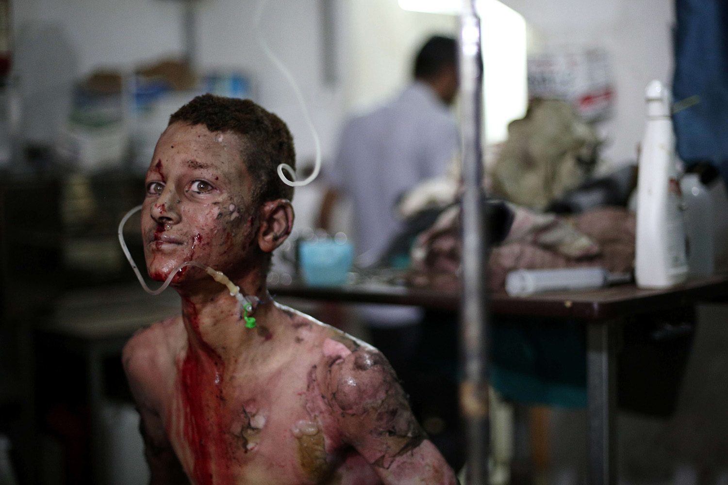 Jun. 28, 2014. A seriously wounded Syrian youth looks on as he is treated at a makeshift hospital on  following a reported car bomb explosion at a popular market in the rebel-held town of Douma, northeast of the capital Damascus.