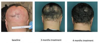 This image shows the effect of an FDA-approved drug that restored hair growth in a research subject with alopecia areata. Left to right: at baseline, at 3 months, and at 4 months of treatment.