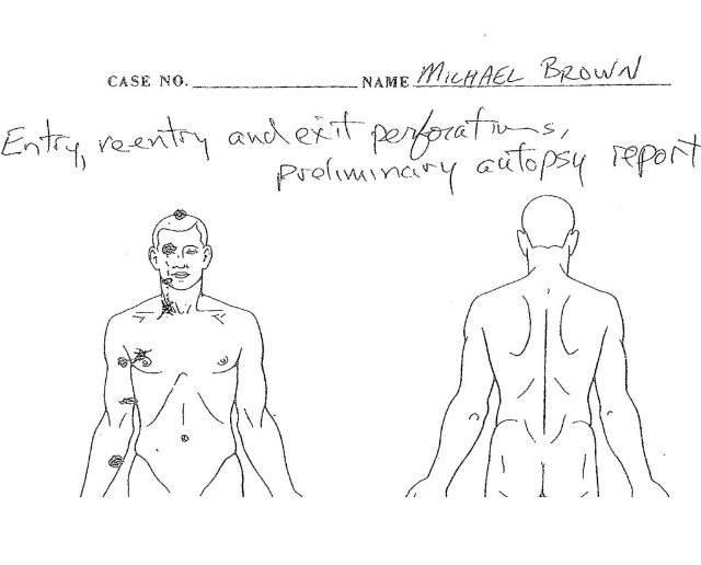 A partial image of Dr. Michael Baden's preliminary autopsy report obtained by NBC News from attorney Anthony Gray, who represents Michael Brown's family.