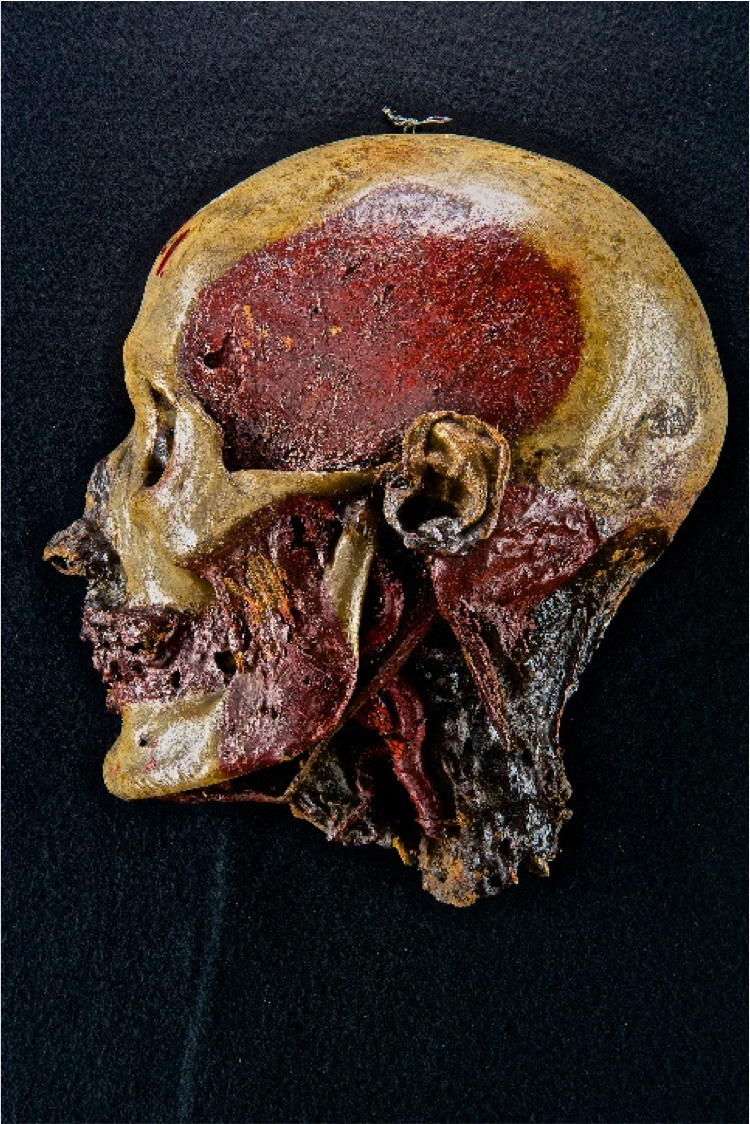 A Burns Collection specimen showing different anatomical structures. This head has been fully dissected to show various blood vessels and connective tissues in great detail.