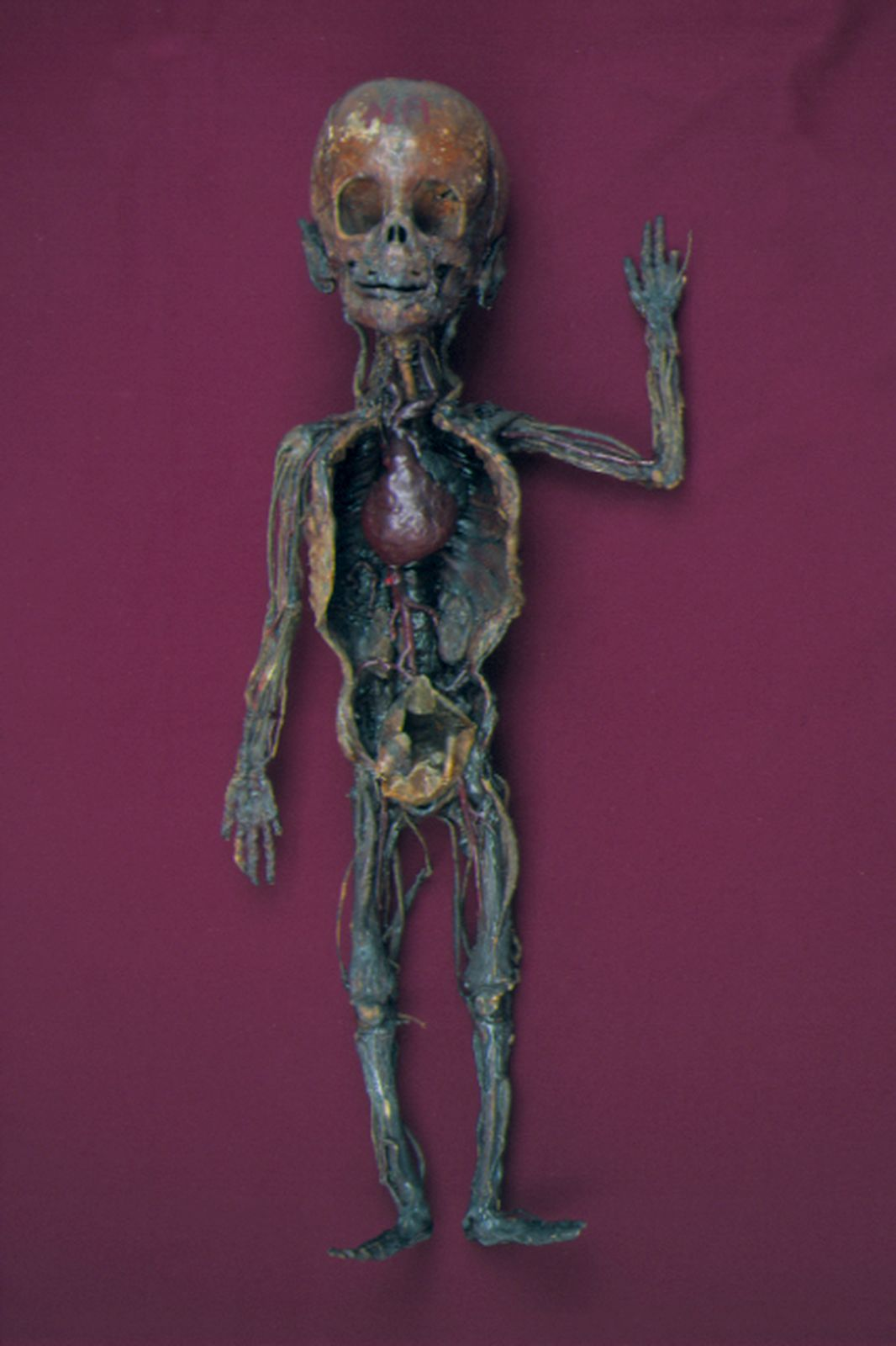 A Burns Collection specimen has been fully prosected. Most of the internal organs have been removed, although the heart is clearly visible.  The age of the child is not known, but it is slightly older than an infant.