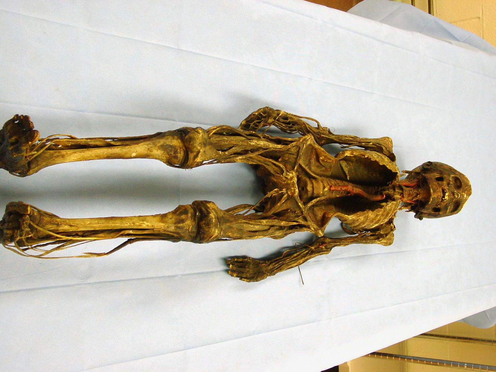 A Burns Collection specimen that was used to teach anatomy to medical students.