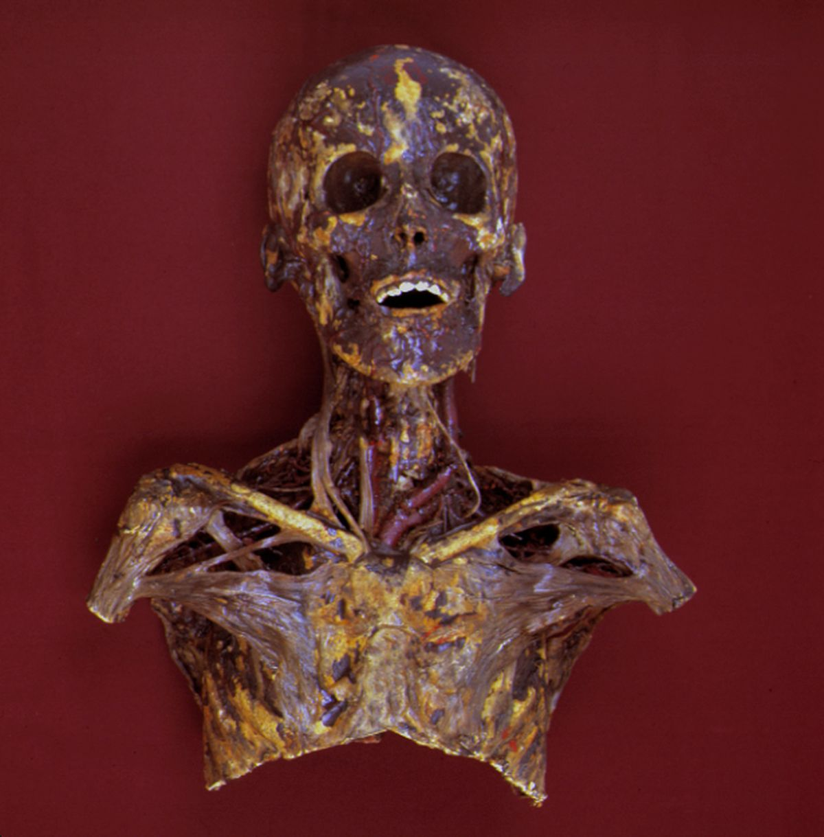 A Burns collection specimen shows part of the head, neck and shoulder area, with an emphasis on the anatomy of the neck area.