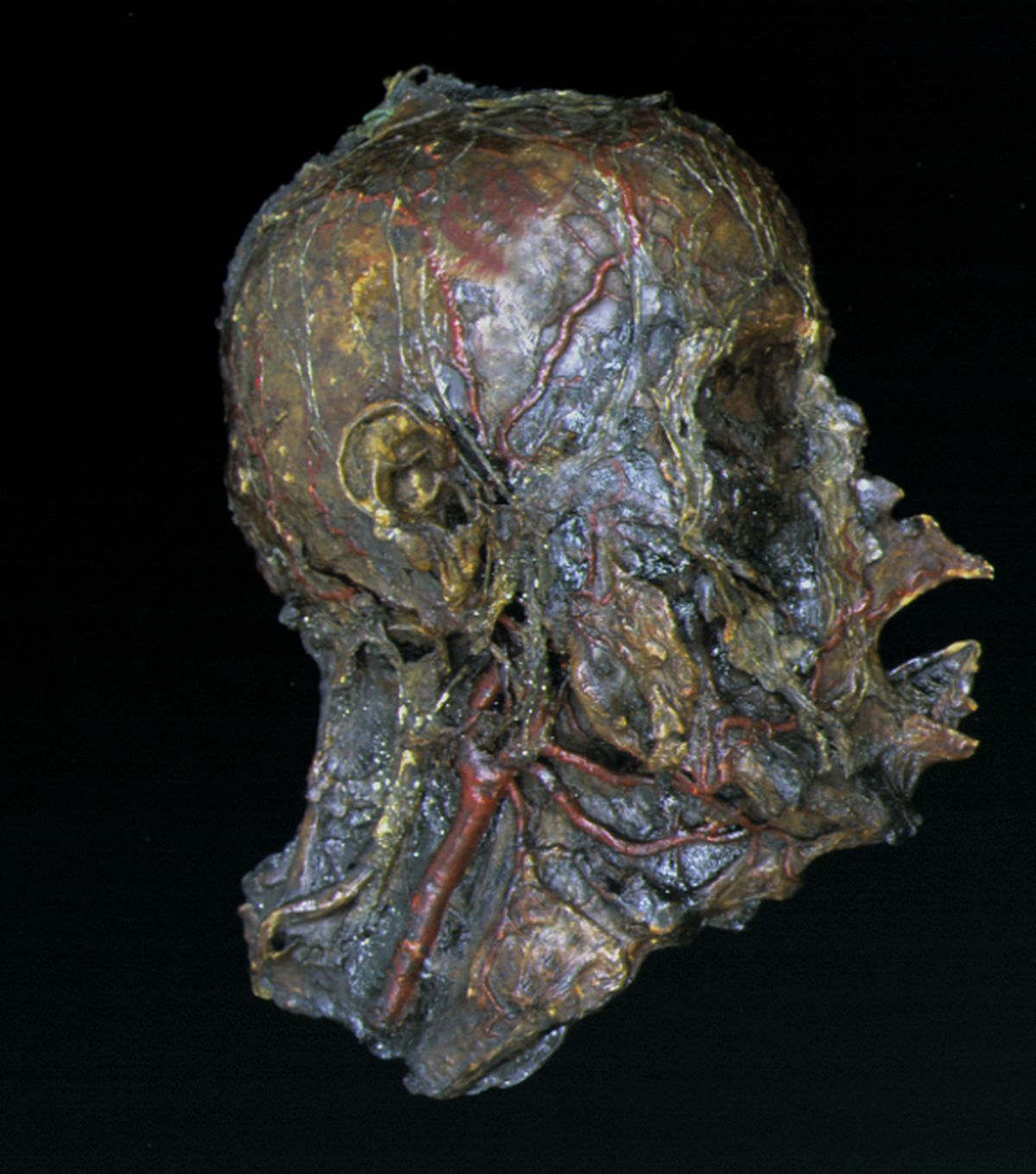A Burns Collection specimen that shows different anatomical structures. This head has been fully dissected to show various blood vessels and connective tissues in great detail.