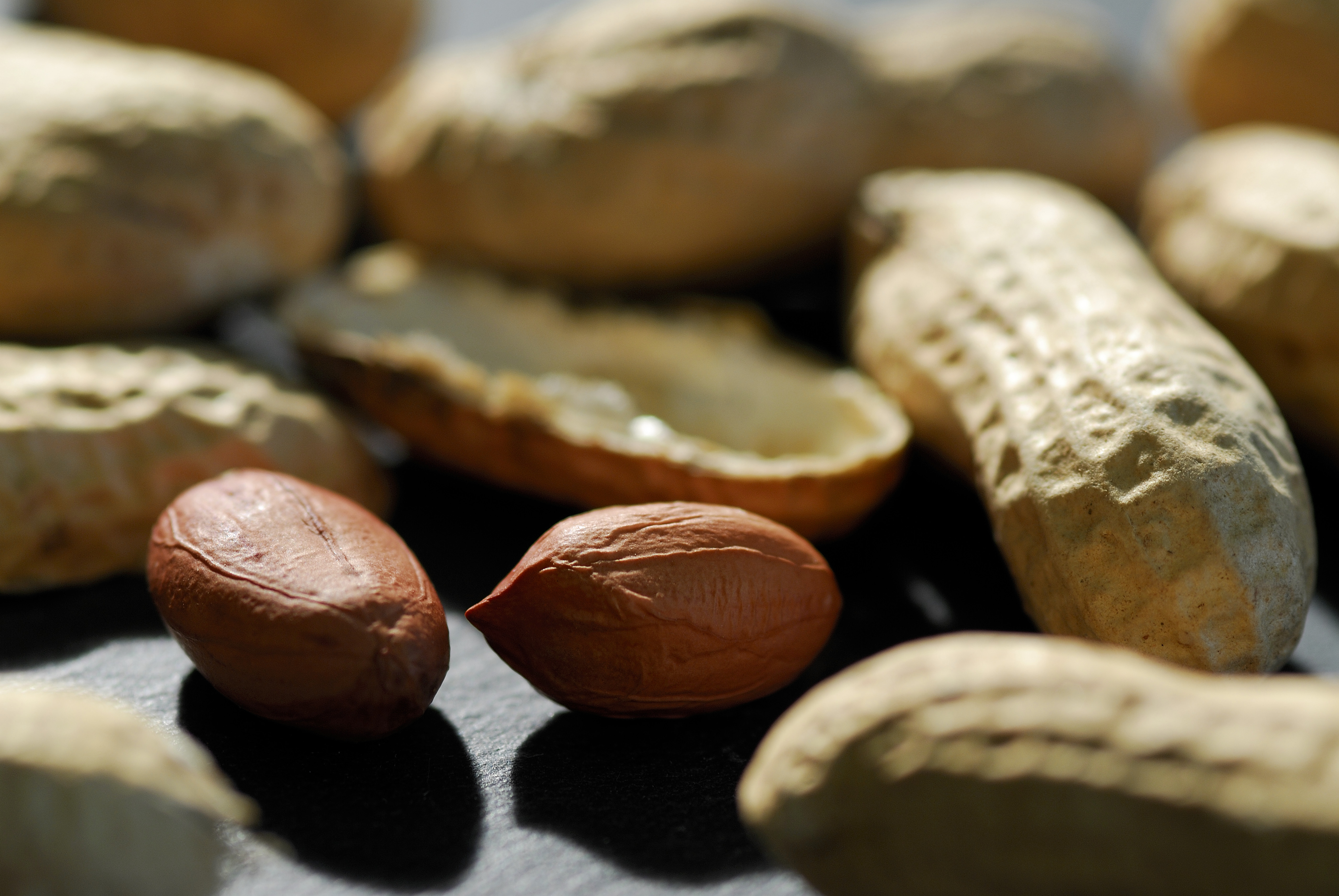 Peanut allergies have risen sharply, but a new therapy is in the beginning stages of research