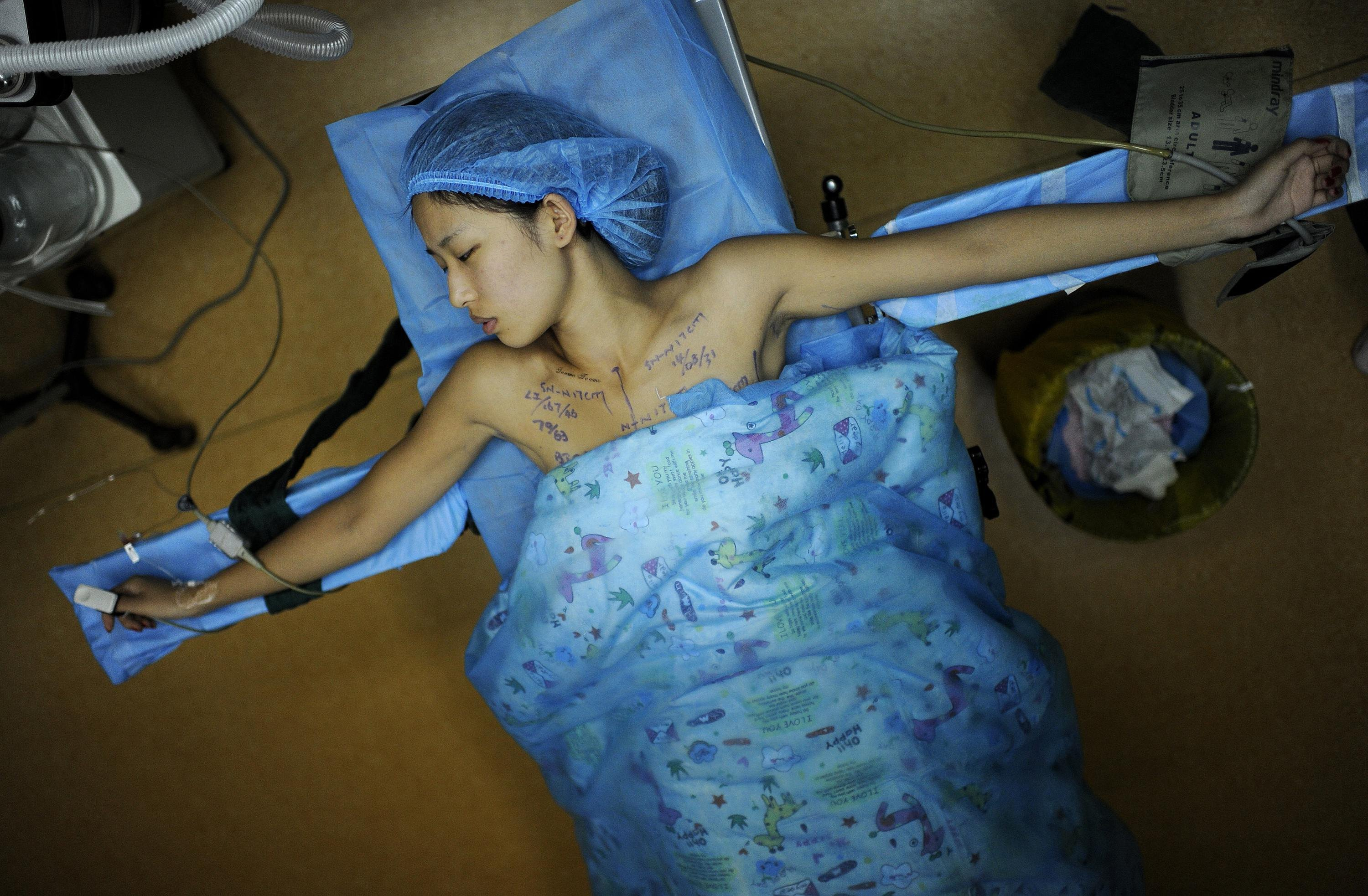 Feifei, 21, undergoes breast implant surgery at a hospital in Hefei, Anhui province, China on Sept. 1, 2014. Feifei, a third-year university student and a part-time model, received a free breast implant surgery in return for advertising for the hospital. Around 10 days after the operation, she won a prize at a local beauty contest.