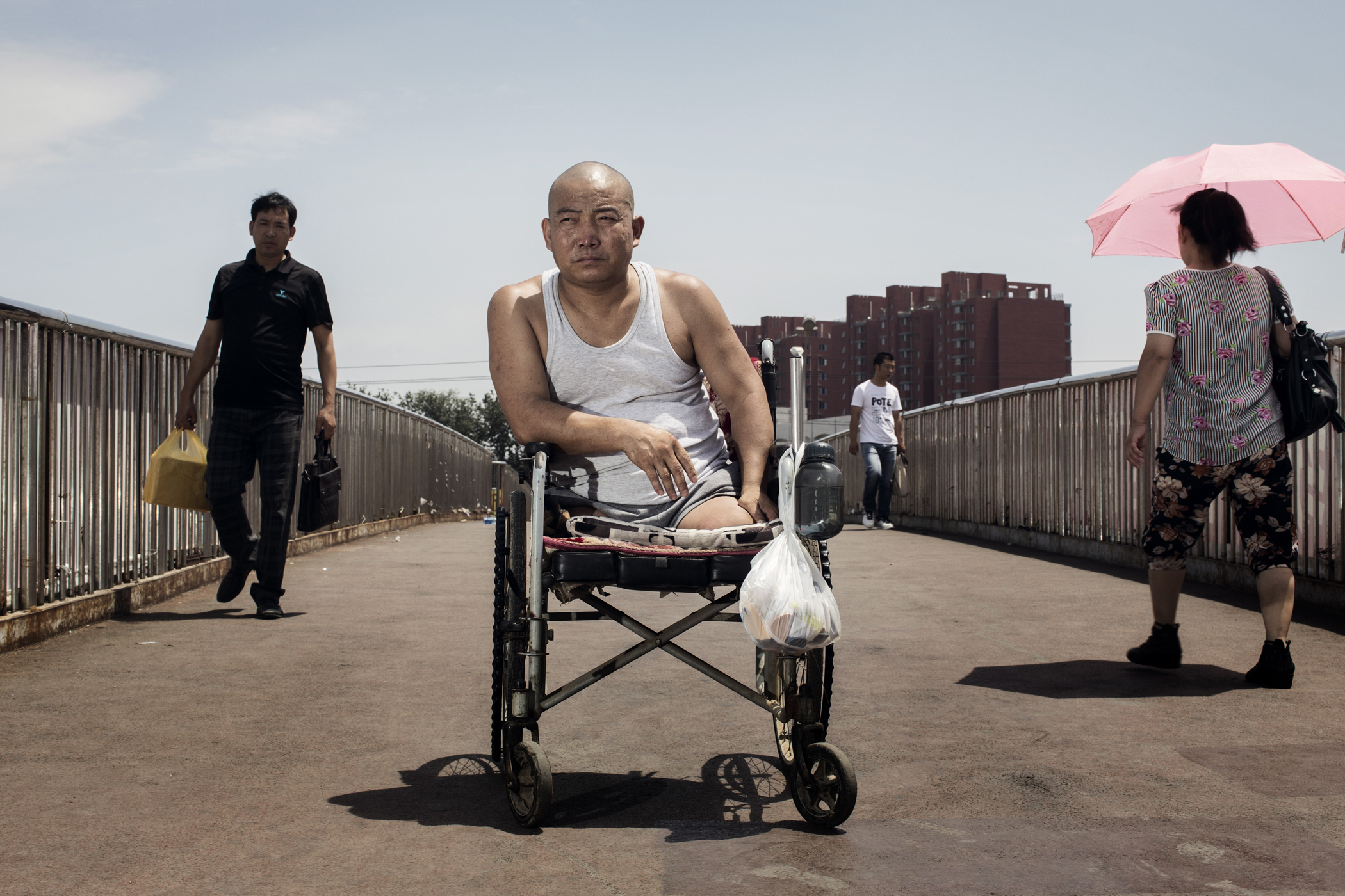 Hebei farmer Zheng currently in Beijing  where he is having prothesis made.