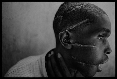 A Hutu man who did not support the genocide had been imprisoned in the concentration camp, starved and attacked with machetes. He managed to survive after he was freed and was placed in the care of the Red Cross, Rwanda, 1994.