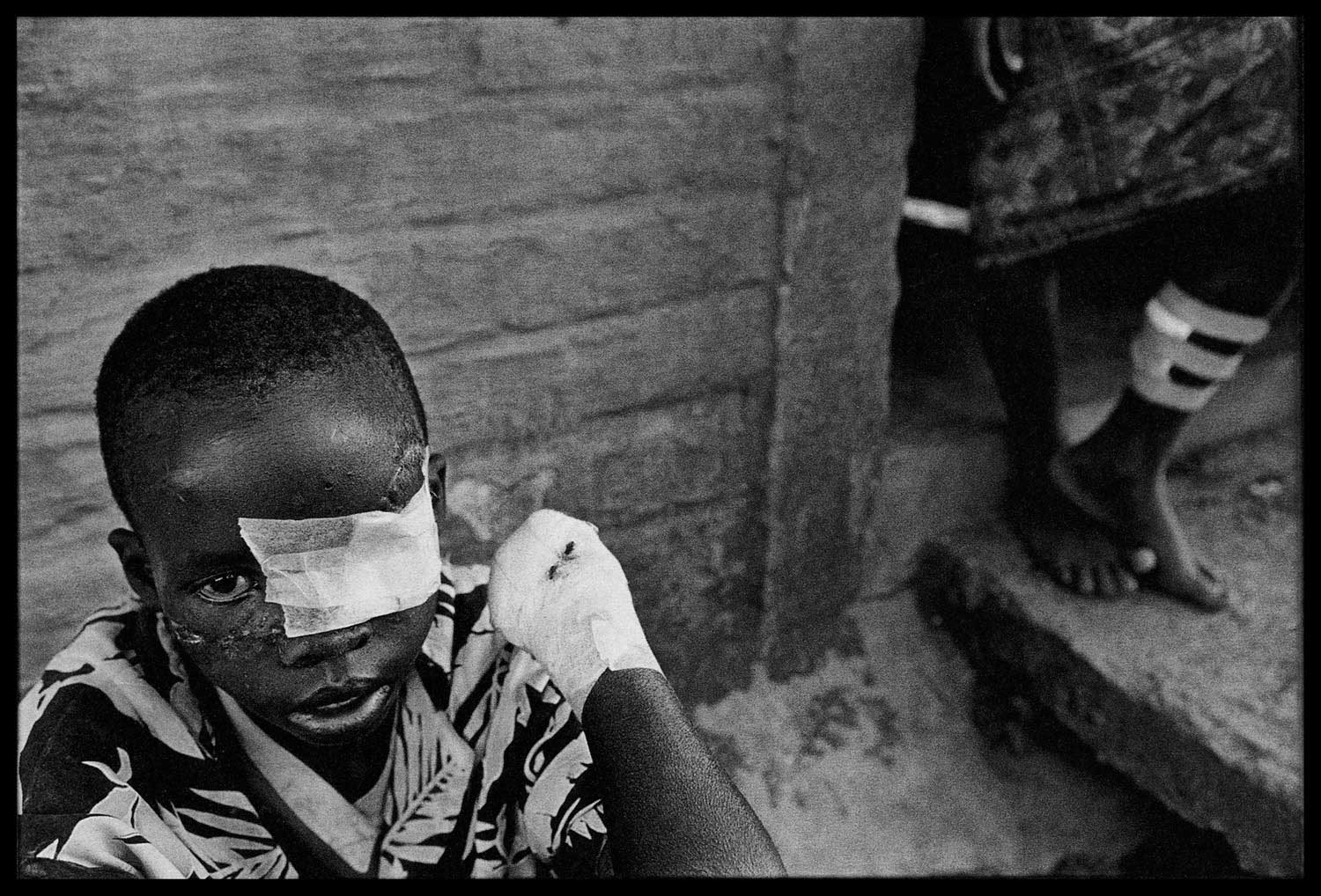 At the Red Cross clinic in Nyanza. Tutsis who had been freed from the death camp were treated for their wounds, Rwanda, 1994.
