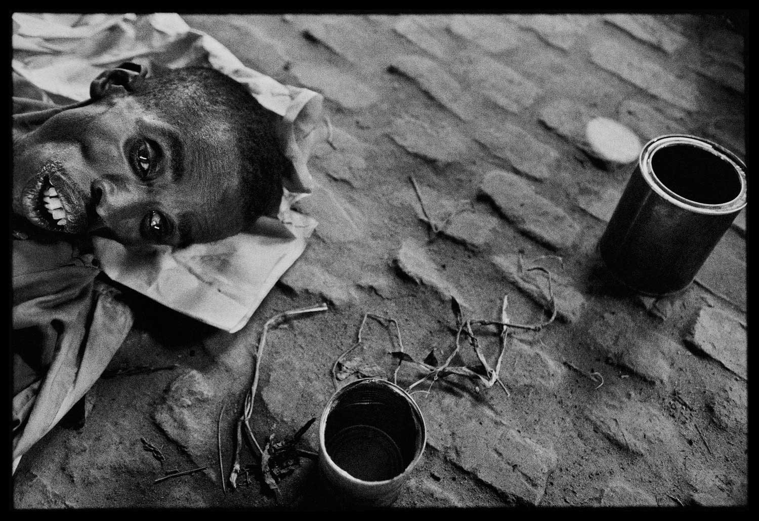 Survivors of the death camp new Nyanza were in extremely poor condition when they were liberated by Tutsi rebel forces, Rwanda, 1994.