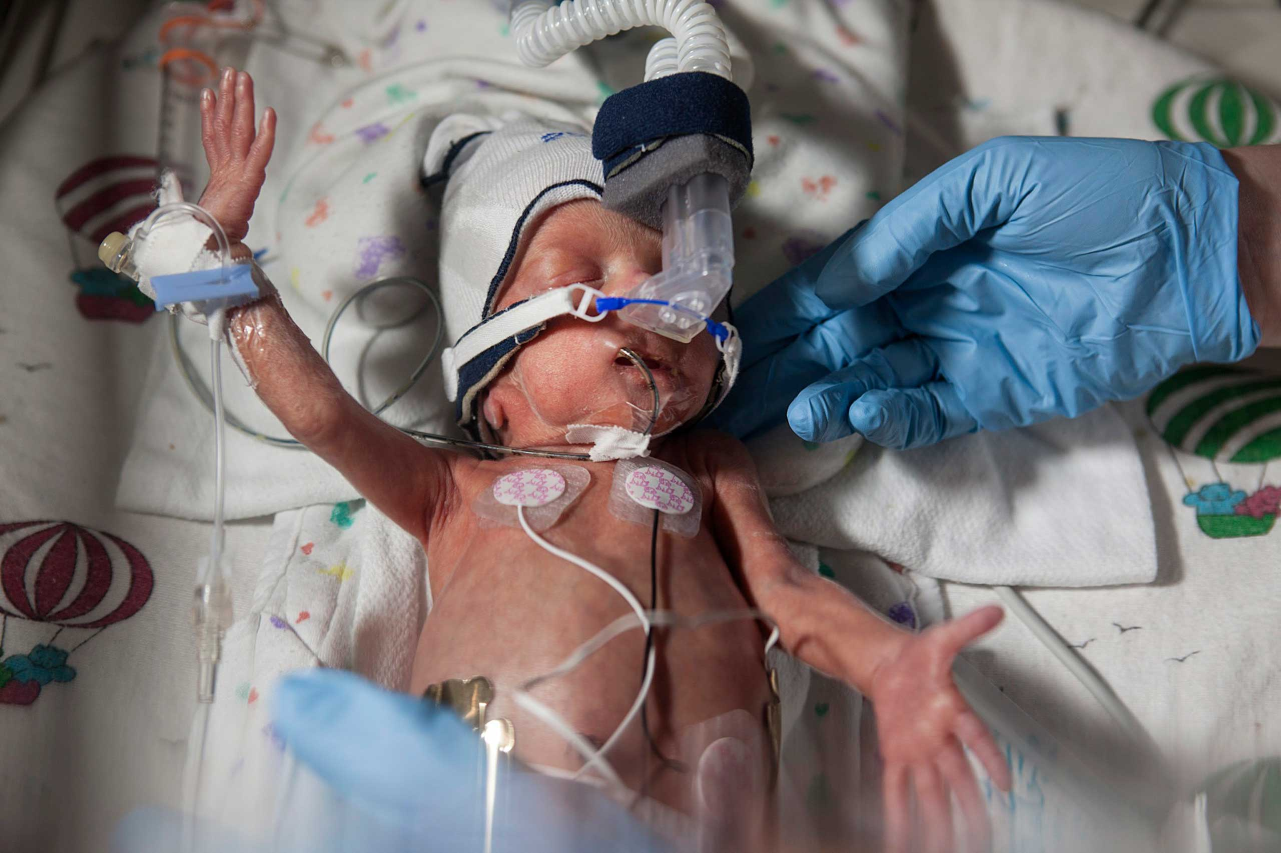 The following images were taken by Elinor Carruci in February 2014.                                David, an infant born at 28 weeks gestation, is seen in an incubator at the Children's Hospital of Wisconsin.