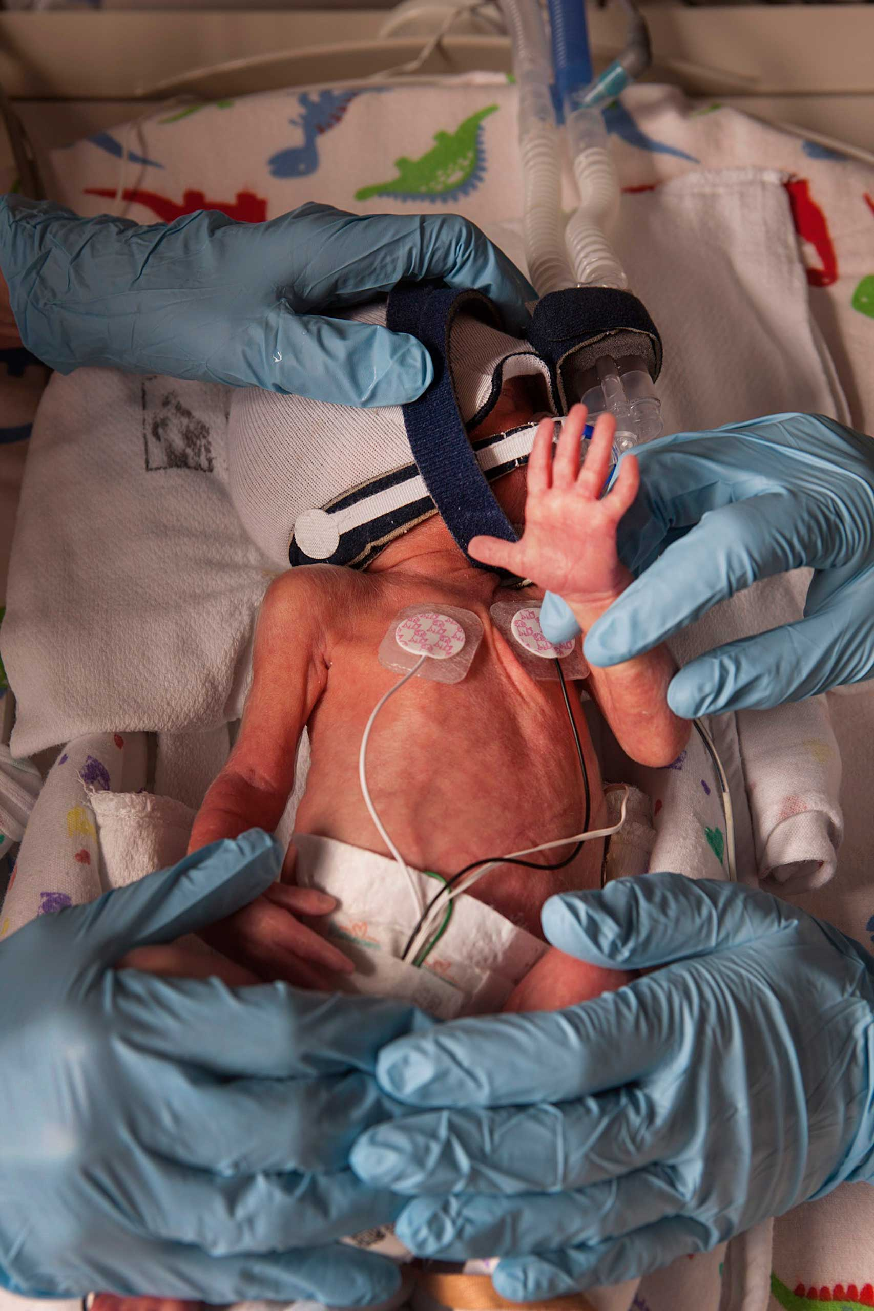 David is seen in an incubator at the Children's Hospital of Wisconsin.