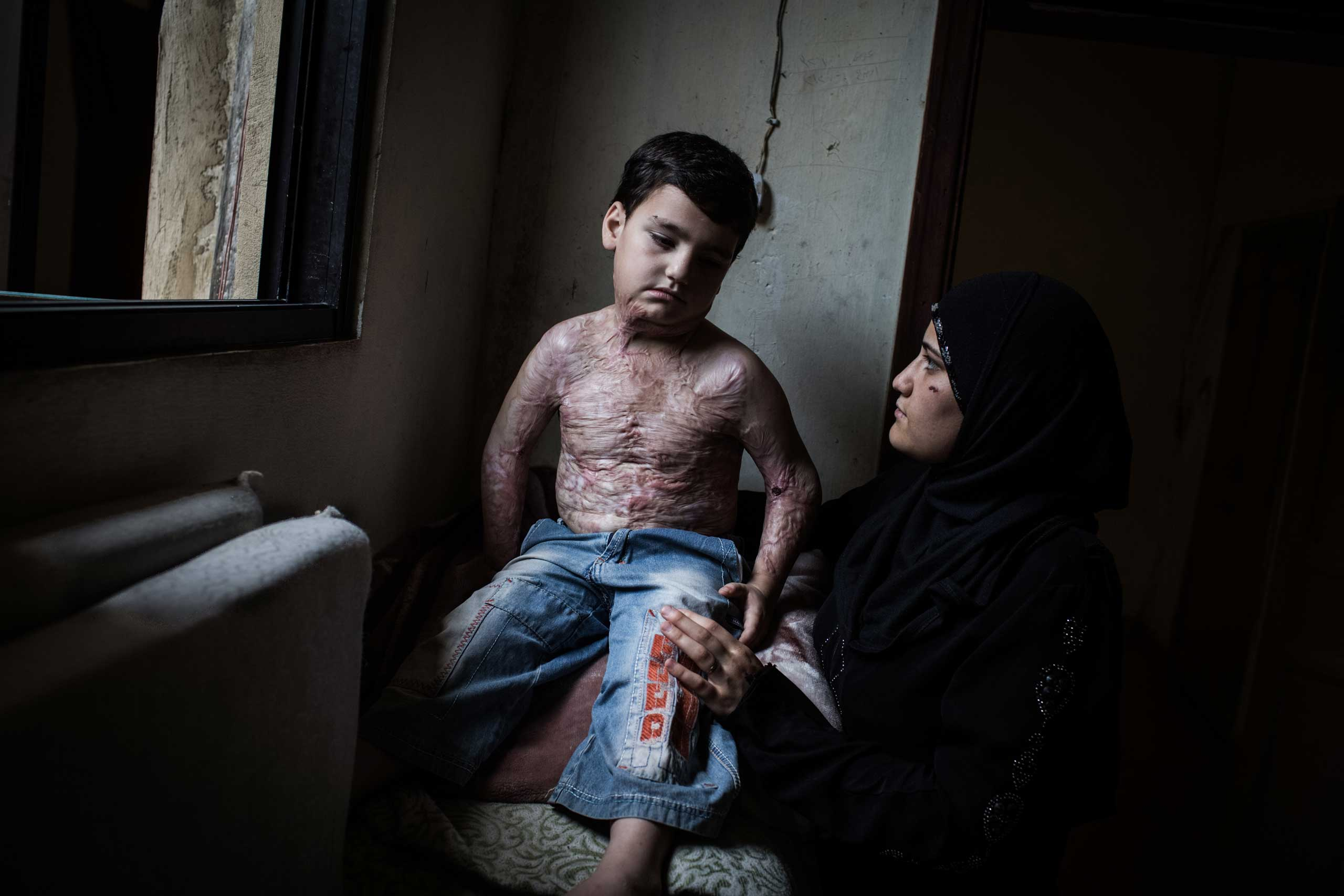 Mohammed, 7, with his mother at a shelter in Donnyeh, Lebanon, June 27, 2014. He was burned by shelling in Homs two years ago; he spent a year getting wounds cleaned and needs several operations and skin grafts.