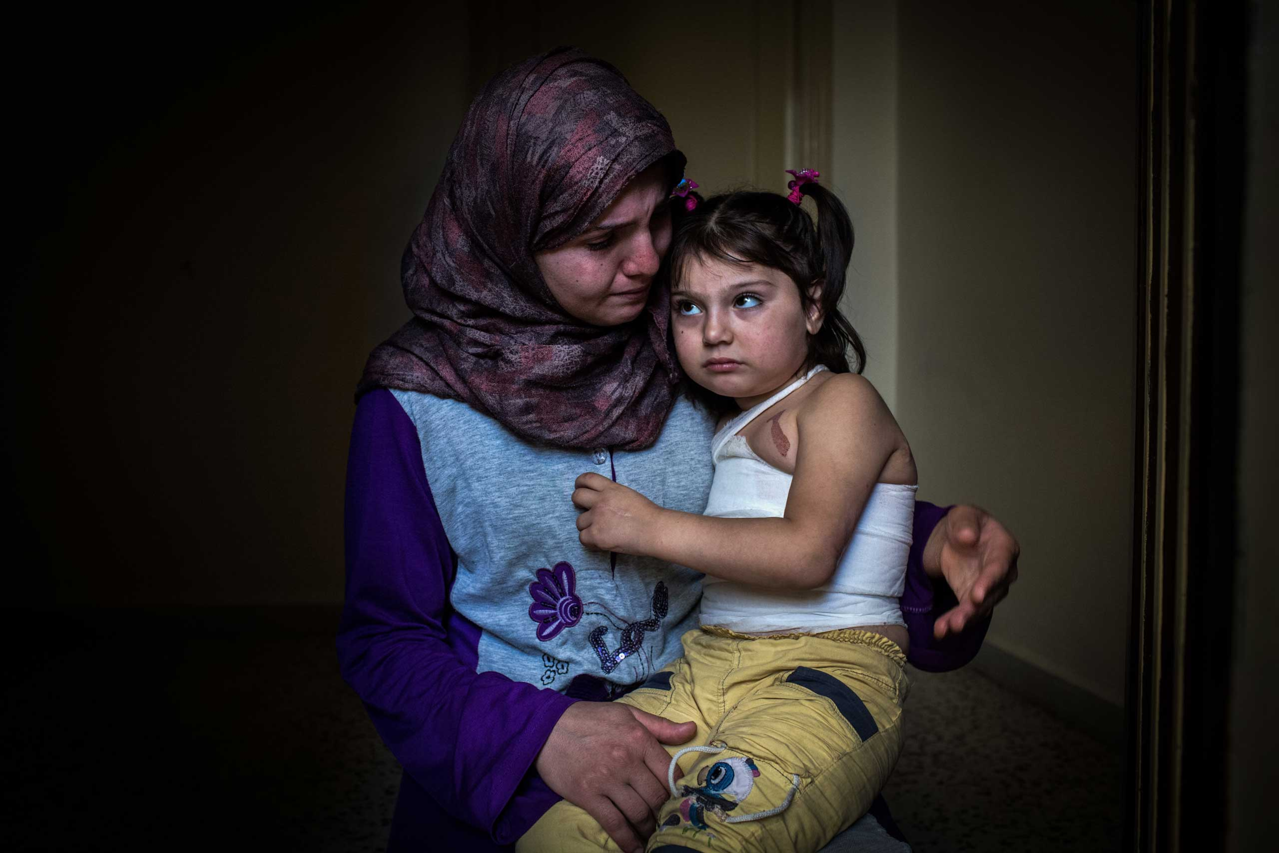 Yemen, 5, and her mother at home in northern Lebanon, on June 27, 2014. The girl was scalded by boiling water as bombs fell close to her home in November. Her mother carried her to Lebanon days later and said she'll need plastic surgery.