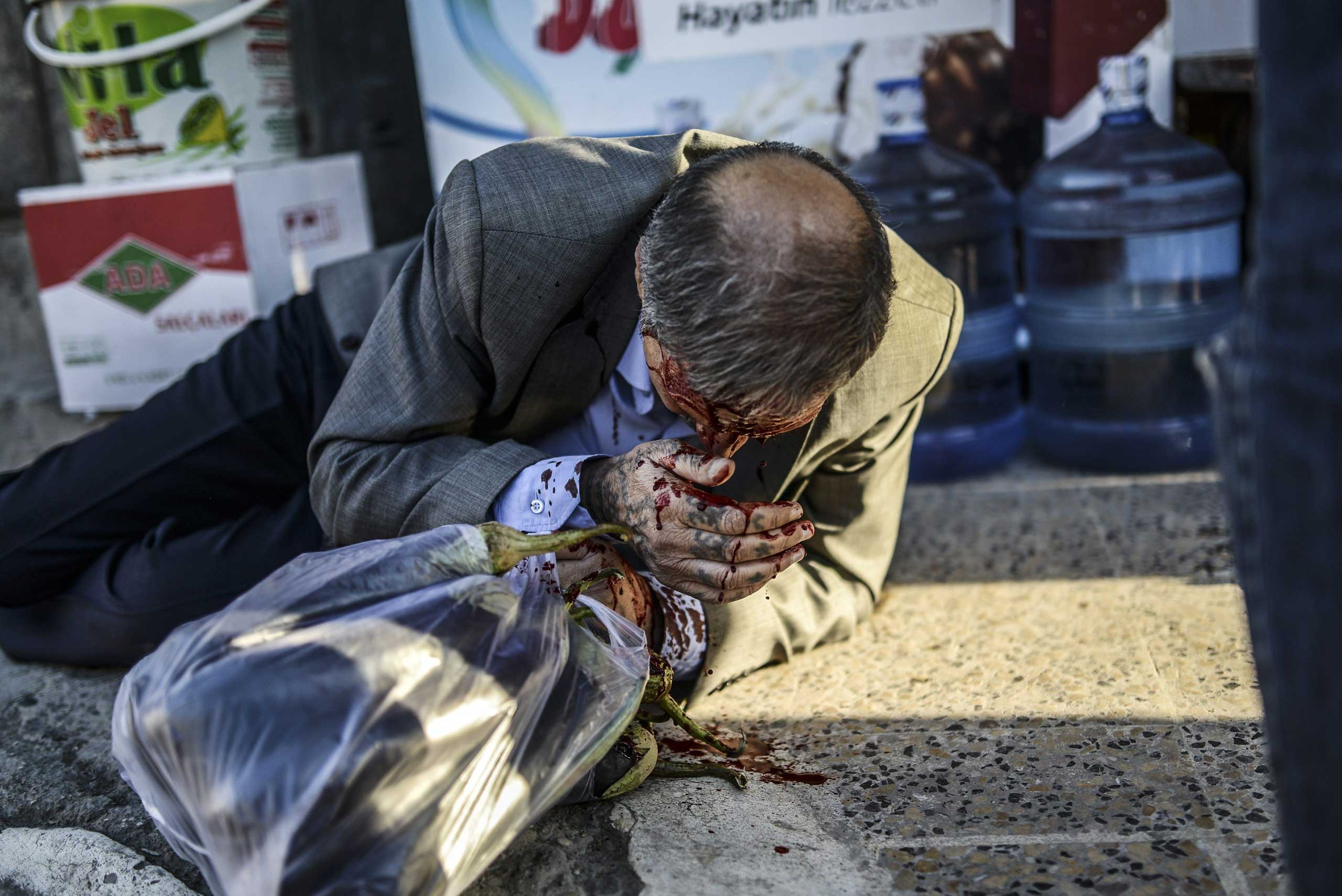 A Kurdish man bleeds after being injured while walking in the center of Suruc during clashes between protestors and Turkish riot policemen after authorities temporarily closed the border at the southeastern town of Suruc in Sanliurfa province, on Sept.  22, 2014.