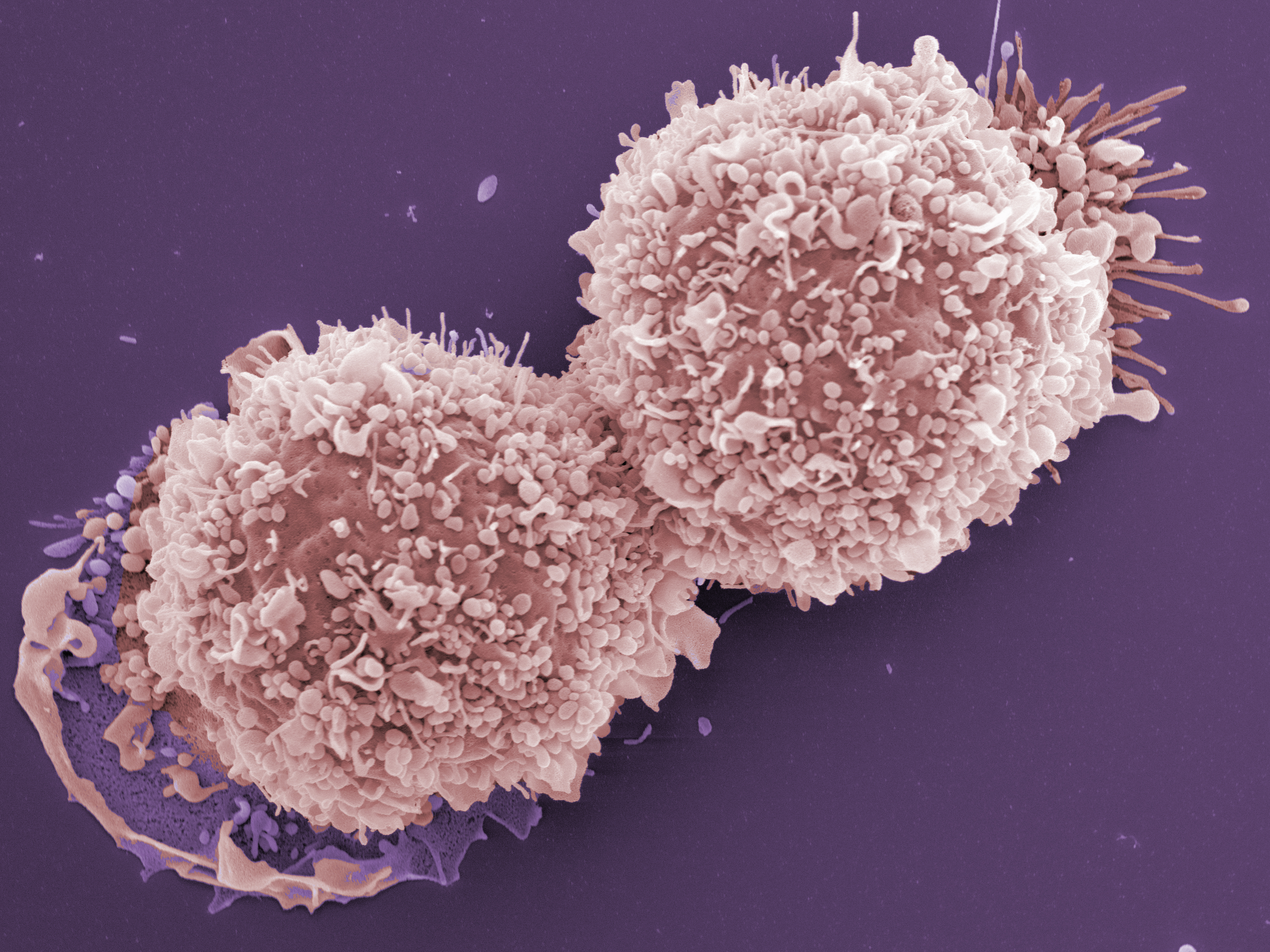 Genetic screening could identify women at highest risk of developing breast cancer
