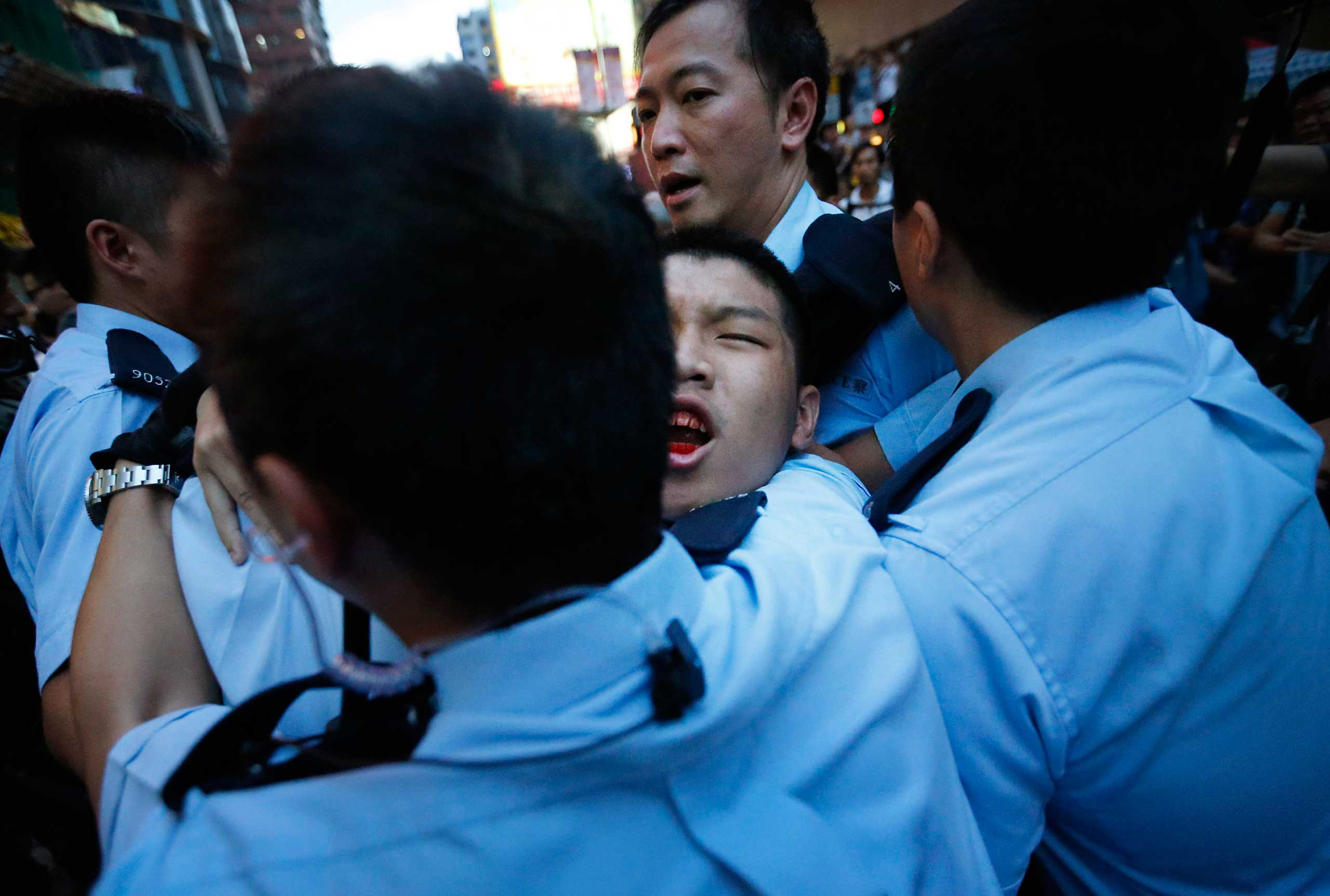 A student protester is injured after being pulled off and hit by residents and pro-Beijing supporters while local police are escorting him out of the protest area in Kowloon's crowded Mong Kok district, Oct. 3, 2014 in Hong Kong.
