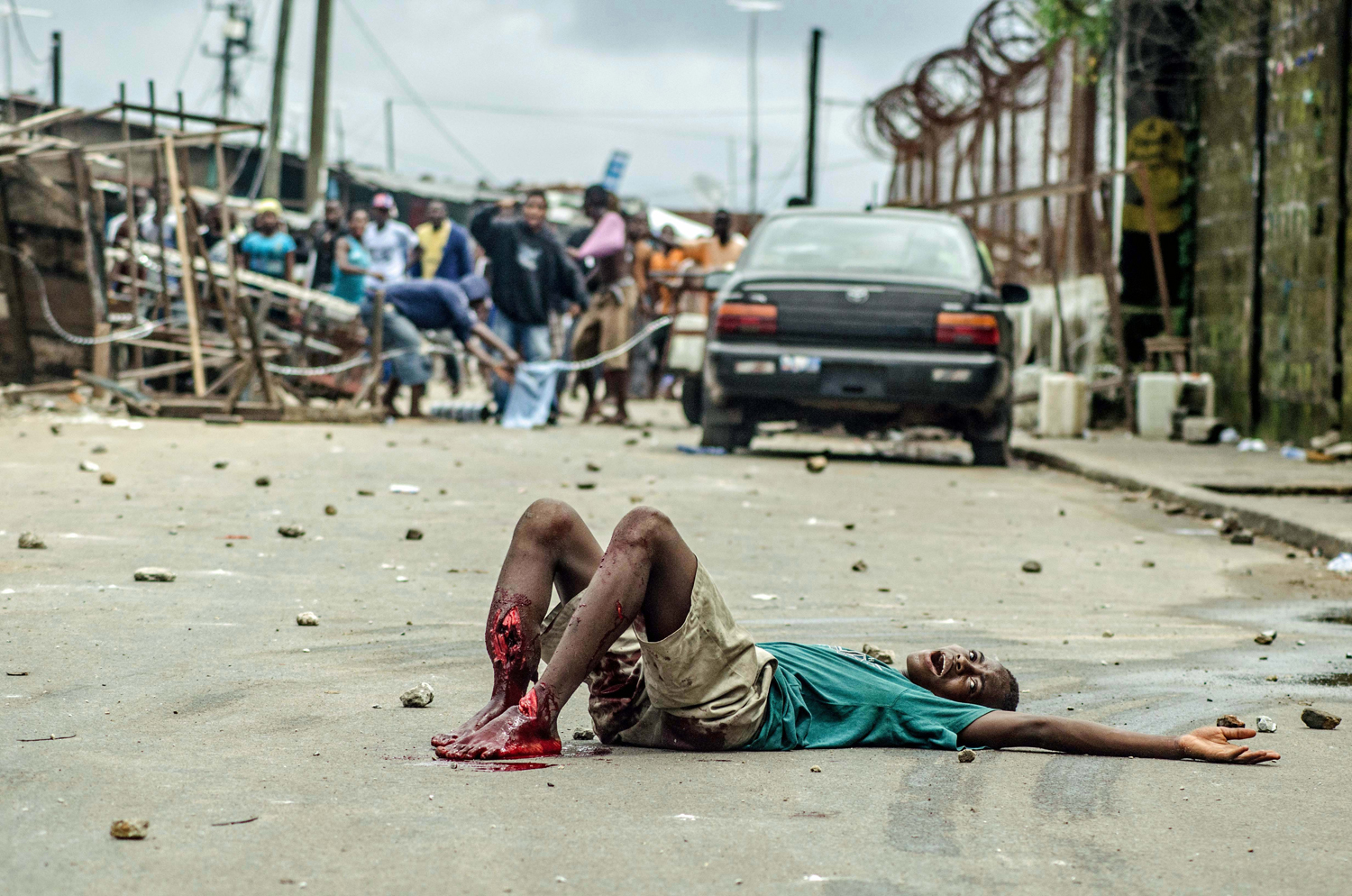 """<b>Tommy Trenchard, Aug. 20, 2014. Monrovia, Liberia.</b>                                                                      """"What's tragic about the case of 15-year-old Shackie Kamara is how needlessly he died. [He was shot in the legs during clashes with police]. Ebola didn't kill him, but the fear, panic and confusion it creates led to the circumstances in which he died. He is a symbol of what Ebola can do to a country or a community. The quarantine of West Point was heavily criticized and lifted shortly afterwards. It achieved little, and Ebola remains rife throughout the city. It is also telling that he died of a treatable wound. After health staff started getting ill and hospitals became seen as sites of infection, the whole health system collapsed. If you get sick or injured in Monrovia, there is simply nowhere to go."""""""