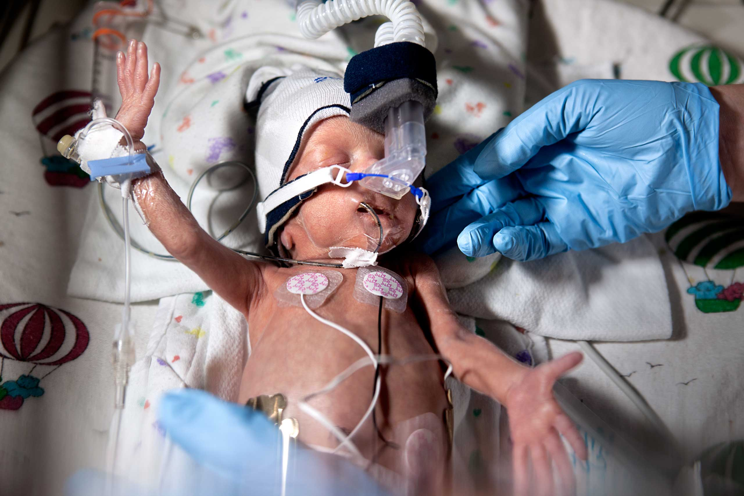 David, an infant born at 28 weeks gestation, is seen in an incubator at the Children's Hospital of Wisconsin. From  Meeting Baby David: Elinor Carucci's Powerful Portraits of Preemies