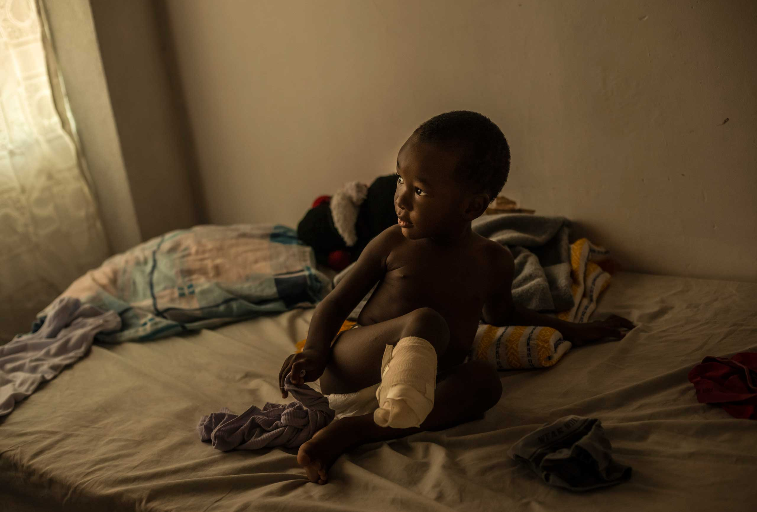 Richard, 2, who had to have his leg partially amputated after falling from a train, waits for a bath from his mother, Emily Bermudez, in Ixtepec, Mexico, July 7, 2014