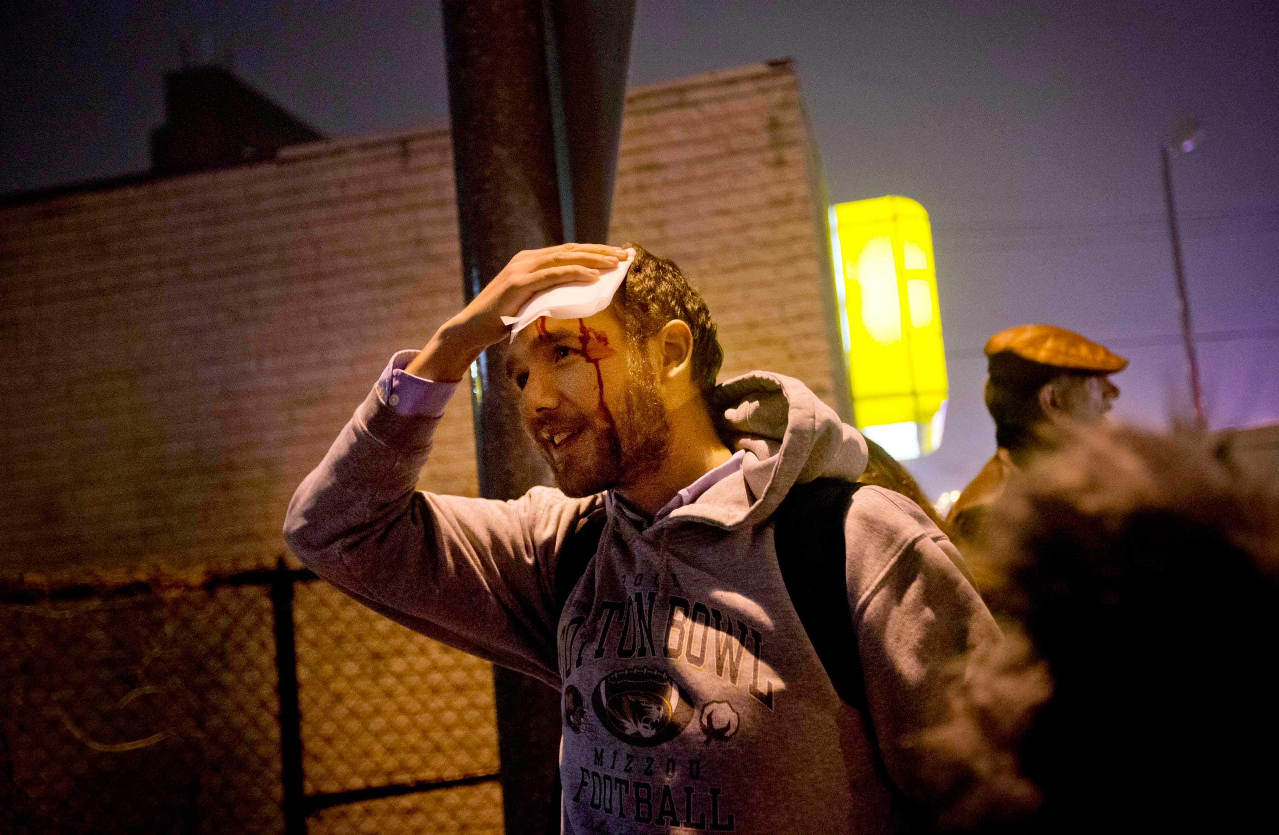 Matt Pearce, a reporter with the Los Angeles <i>Times</i>, holds his head after getting clocked with a rock thrown into the crowd during a protest in the streets in St. Louis on Nov. 23, 2014.