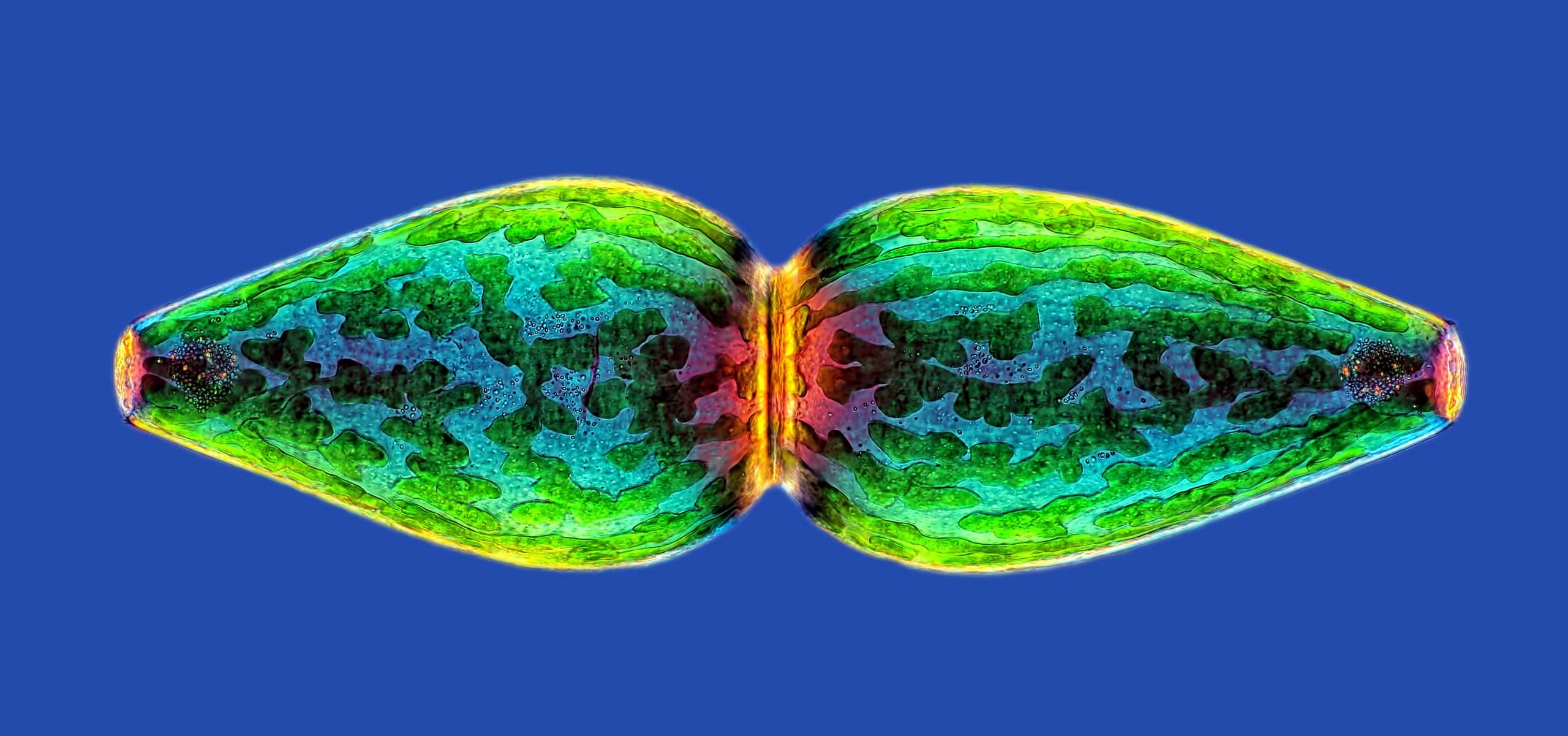 Pleurotaenium ovatum (micro algae) at 40x magnification.