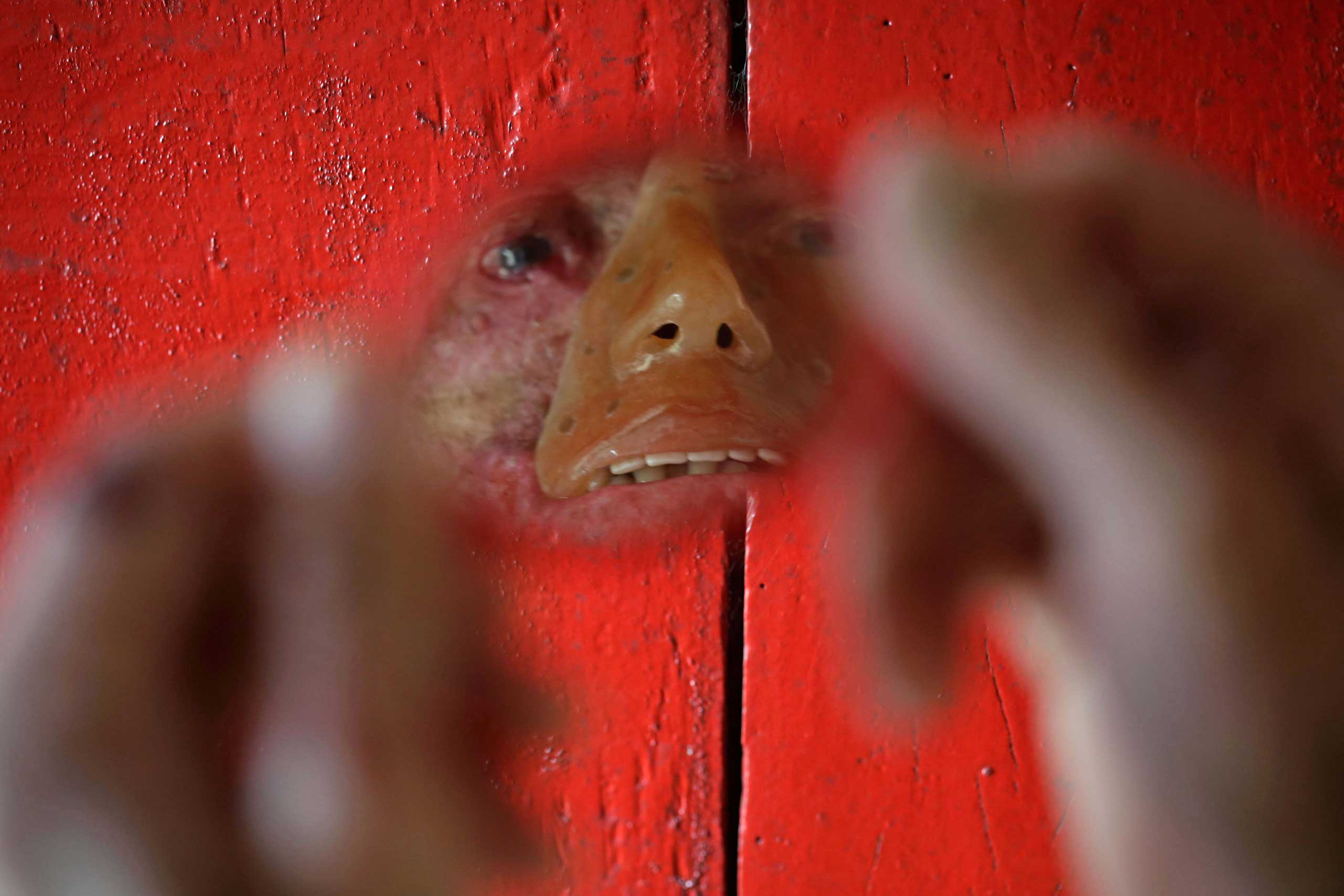 Djalma Antonio Jardim who has a rare inherited skin disease known as xeroderma pigmentosum looks in a mirror at his home in the Araras community of Brazil's Goias state, March 3, 2014.