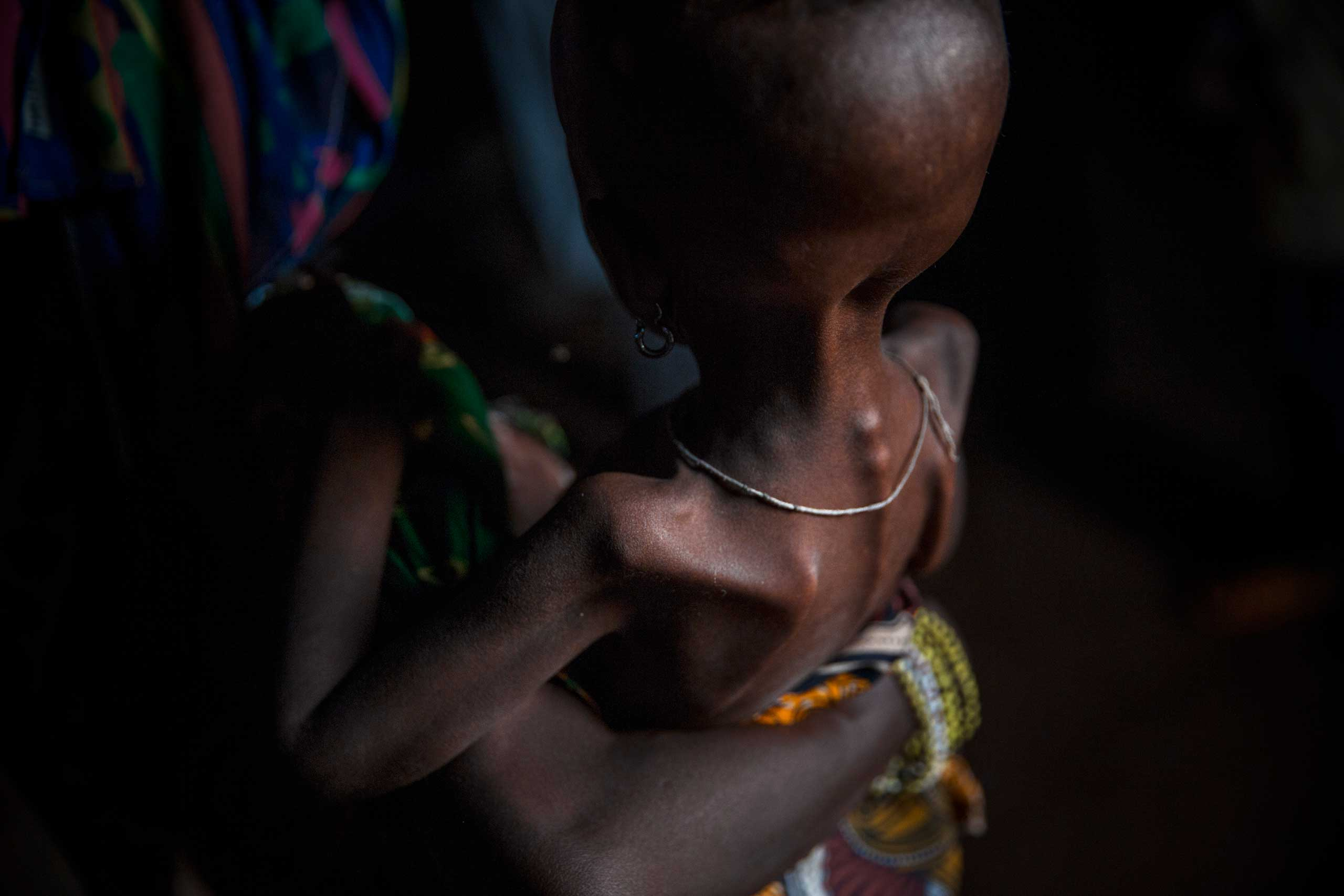 Peuhl children suffer from malnutrition and diarrhea in the enclave. Boda, Central African Republic. April 4, 2014.