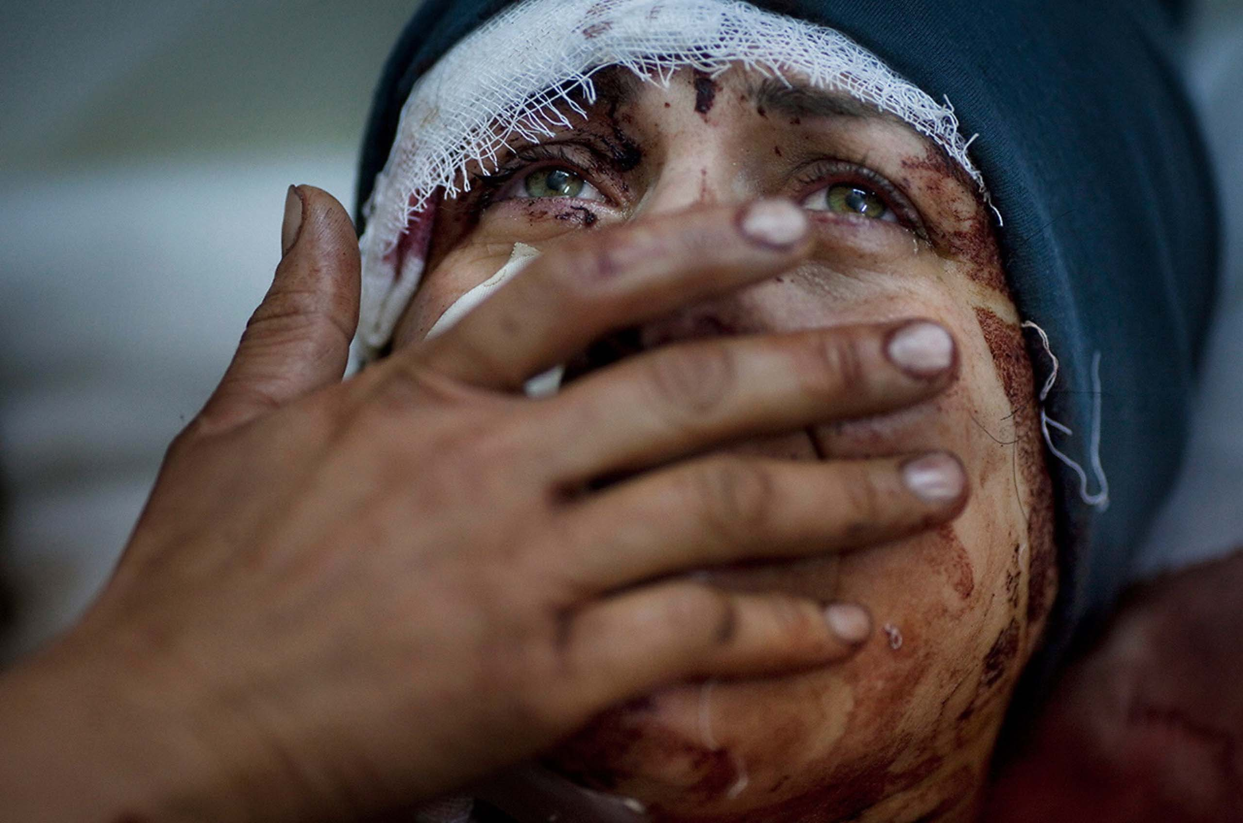 Aida crying while recovering from severe injuries she received when her house was shelled by Syrian troops.