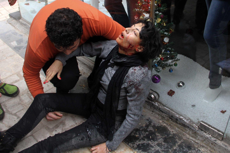 Socialist Alliance Party  activist Shaimaa al-Sabbagh after being shot in Cairo, Jan. 24, 2015.