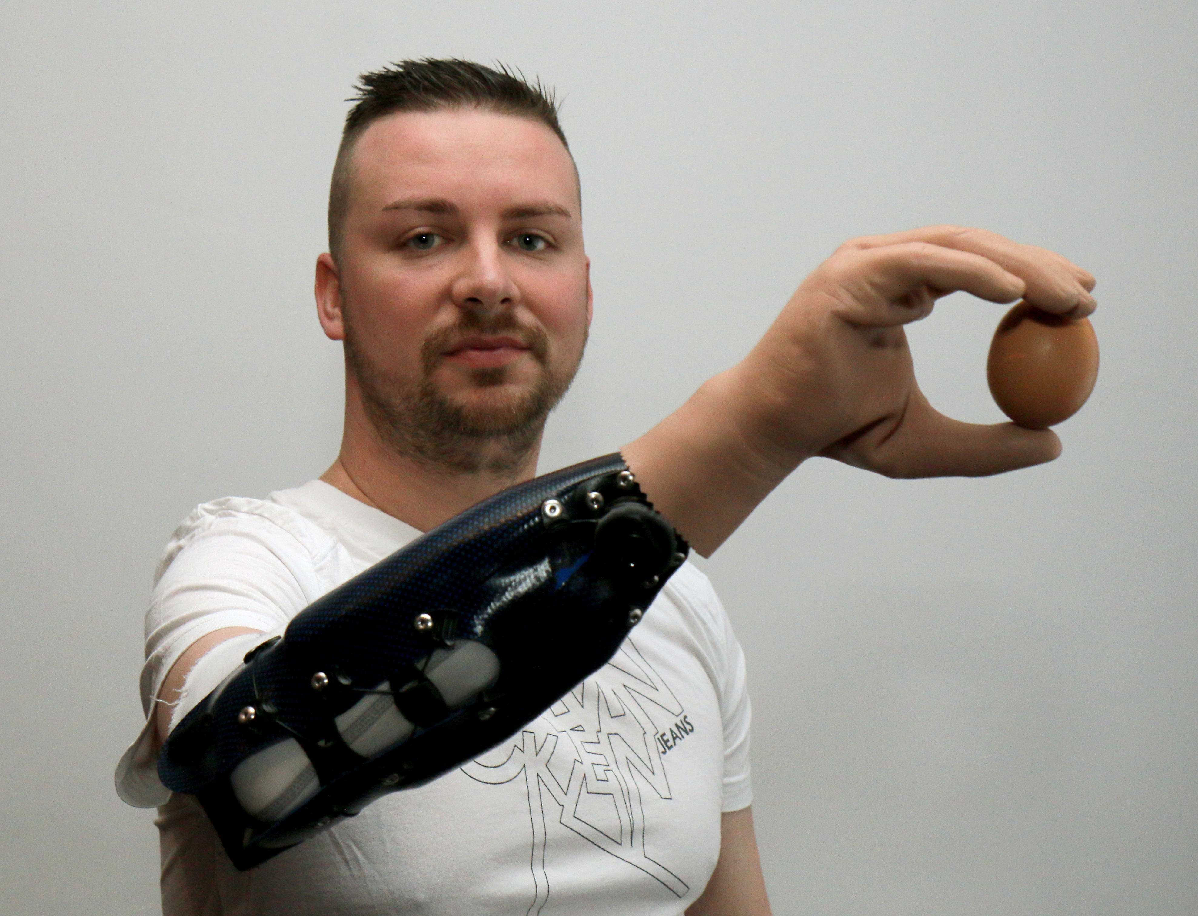 Milorad Marinkovic holds an egg with his bionic arm in Vienna, Austria on Feb. 24, 2015.