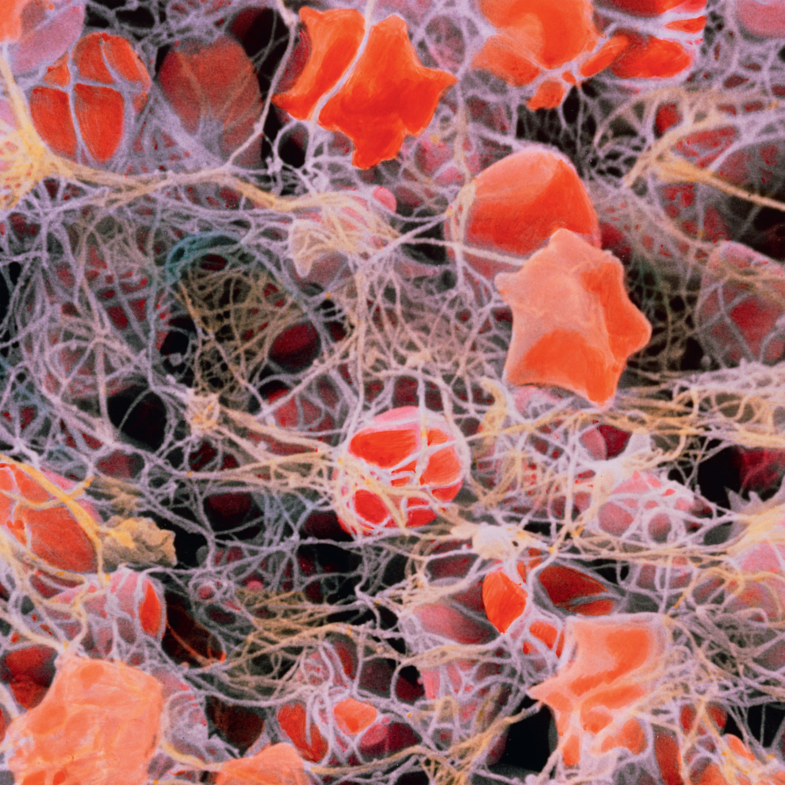<b>Blood clot</b> (colored scanning electron micrograph)
