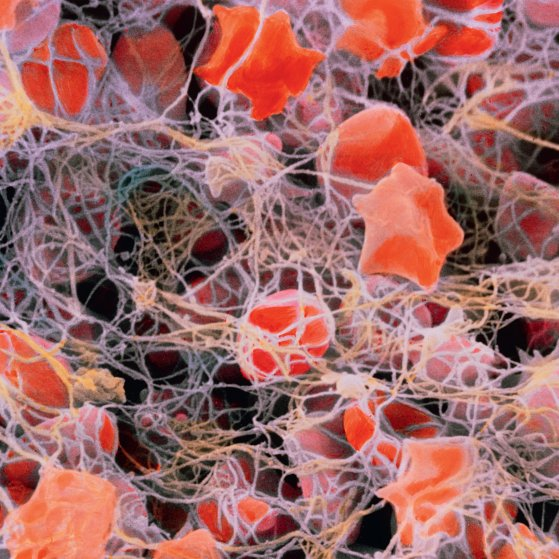 Blood clot (coloured scanning electron micrograph)
