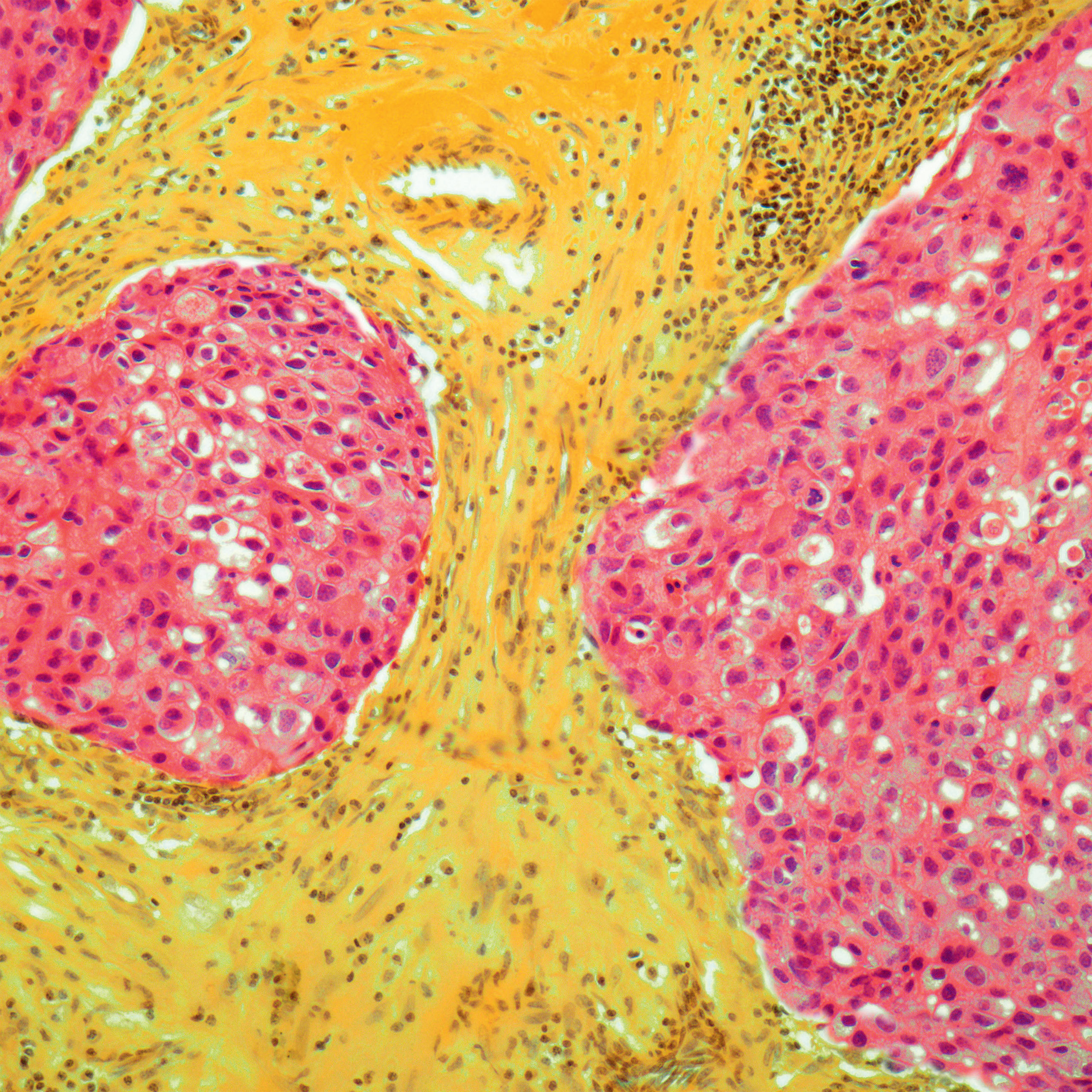 <b>Breast cancer</b> (light micrograph)